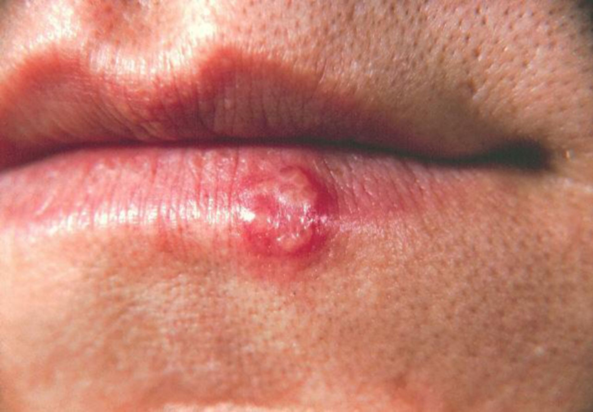Herpes simplex Läsion (3)