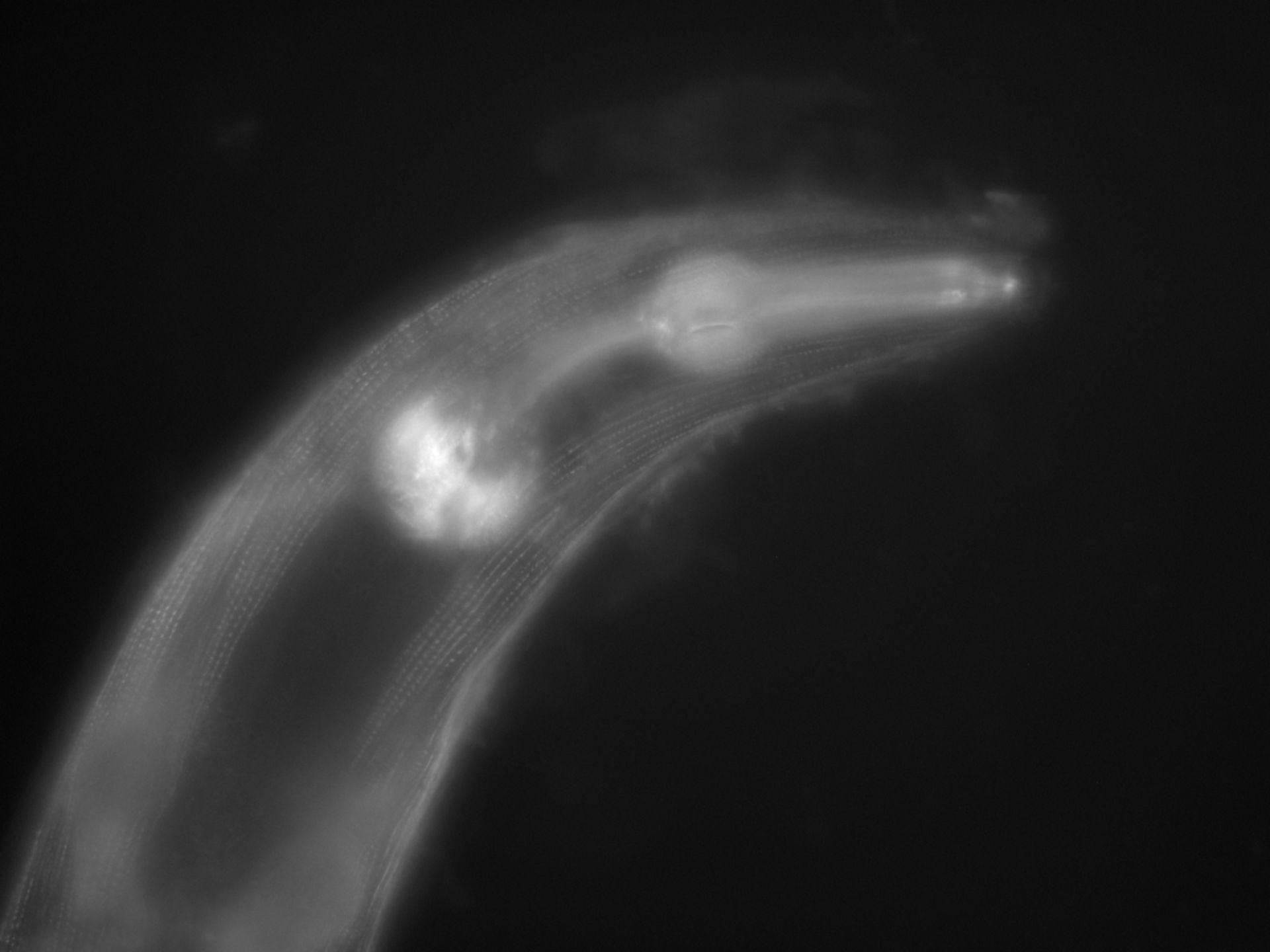 Caenorhabditis elegans (Actin filament) - CIL:1130