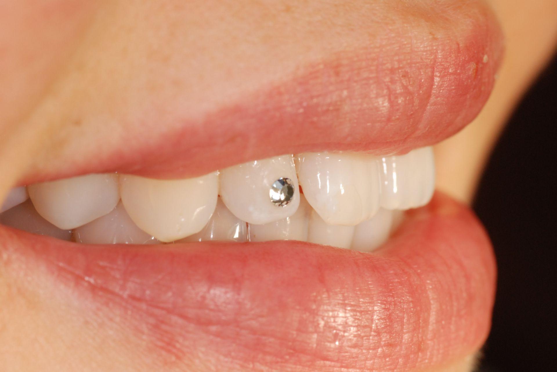 Rhinestone tooth