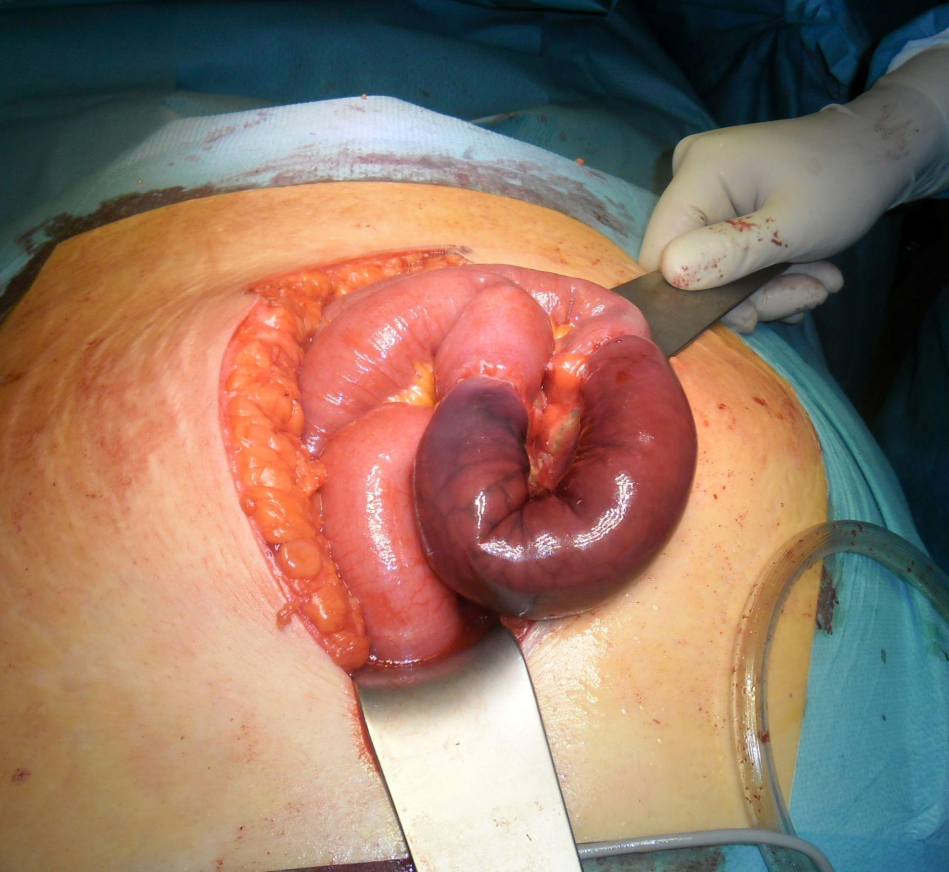 Inkarzerierte epigastrische Hernie