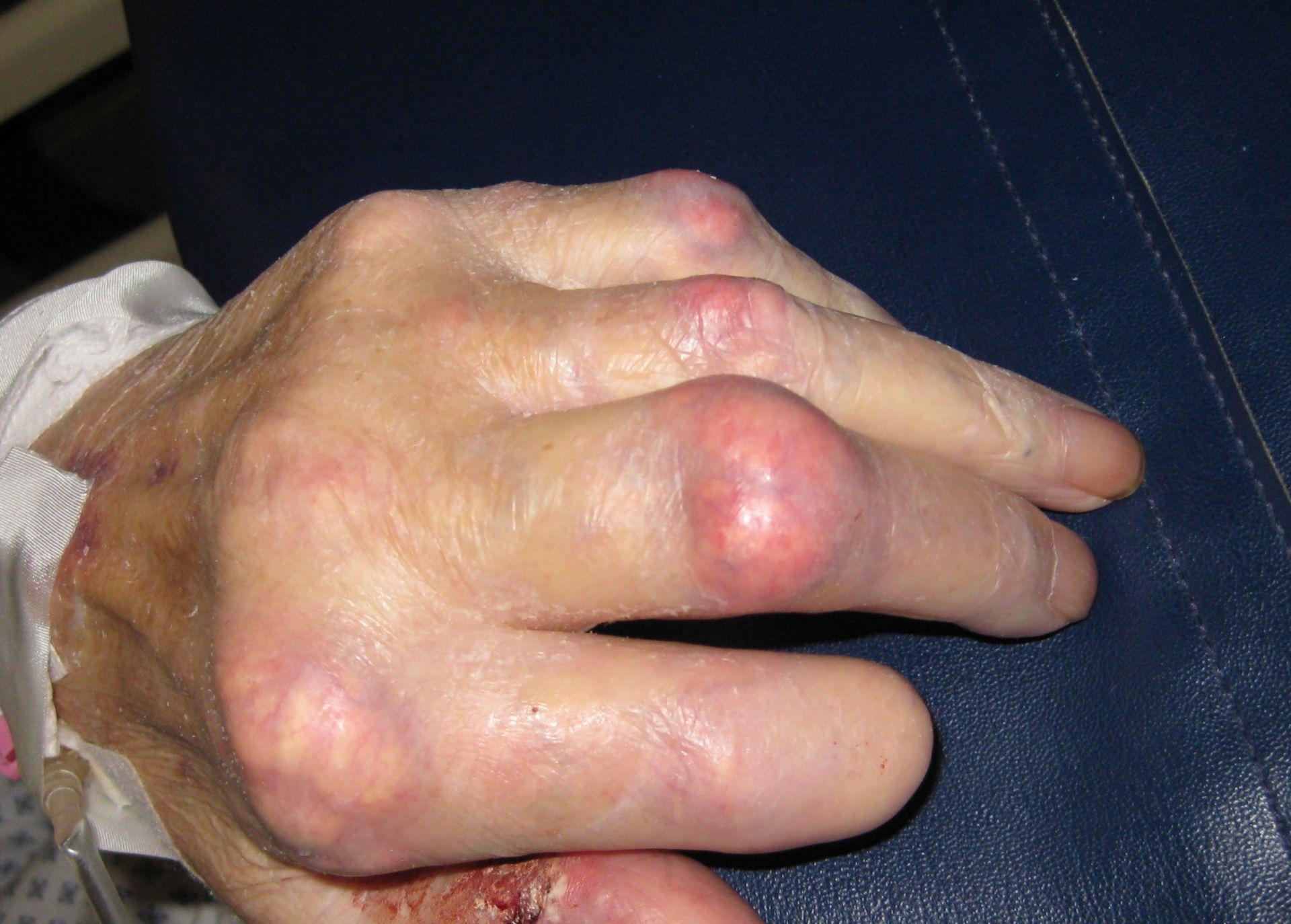 Artritis gotosa (2)