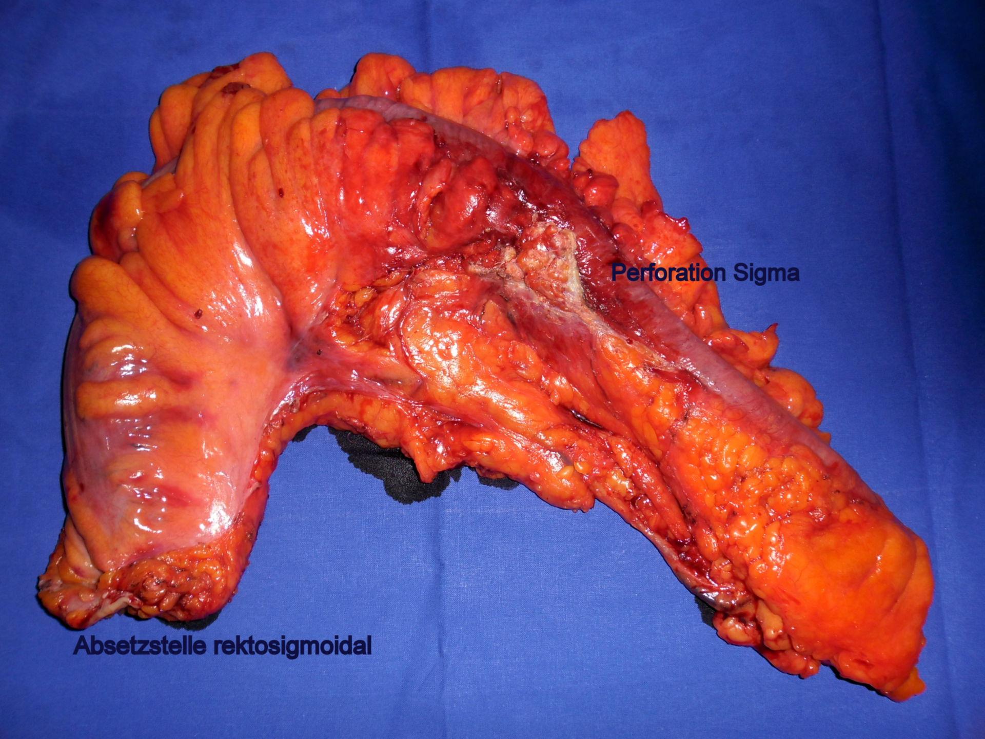 Sigmoid Colon Diverticulitis