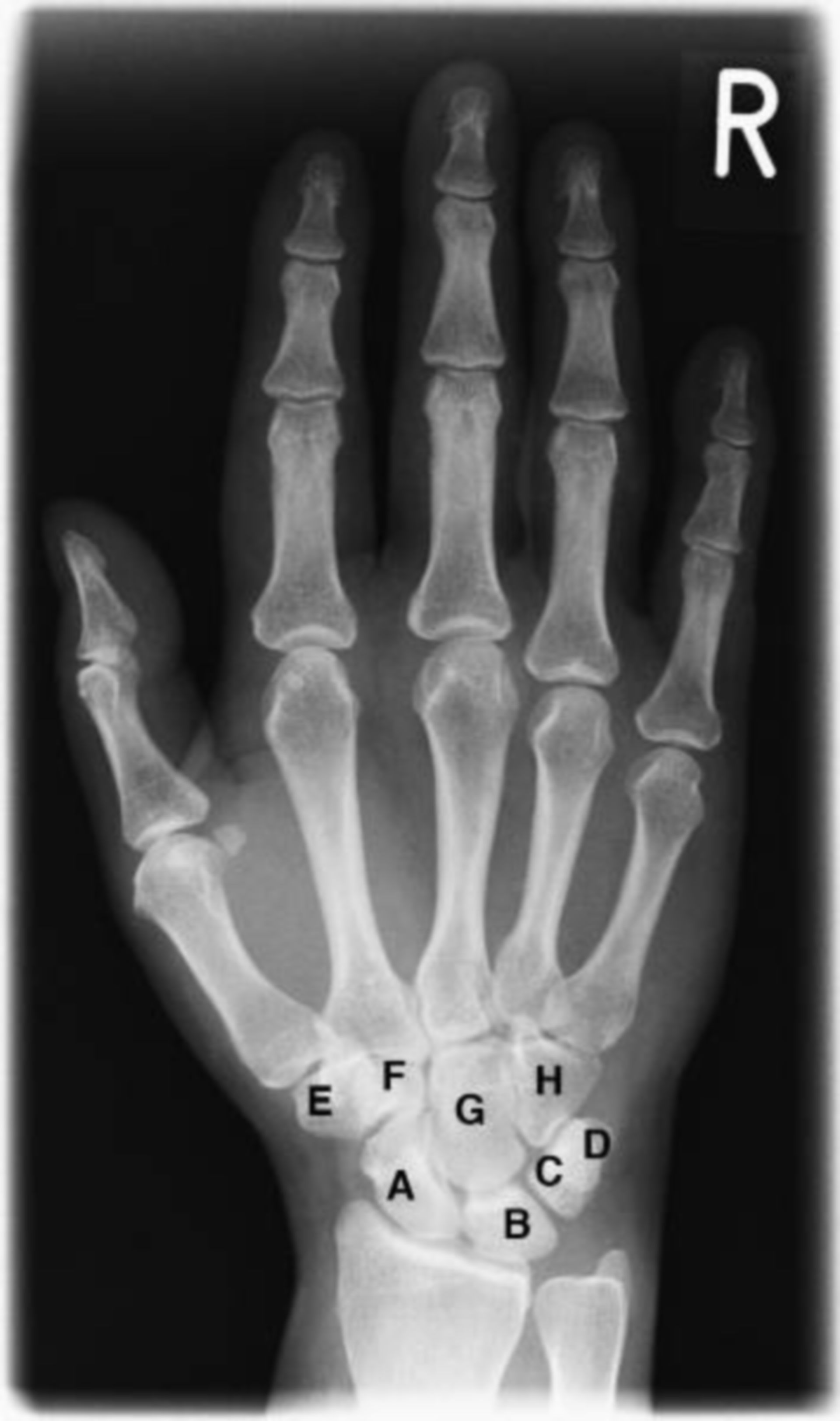 X-ray of the wrist