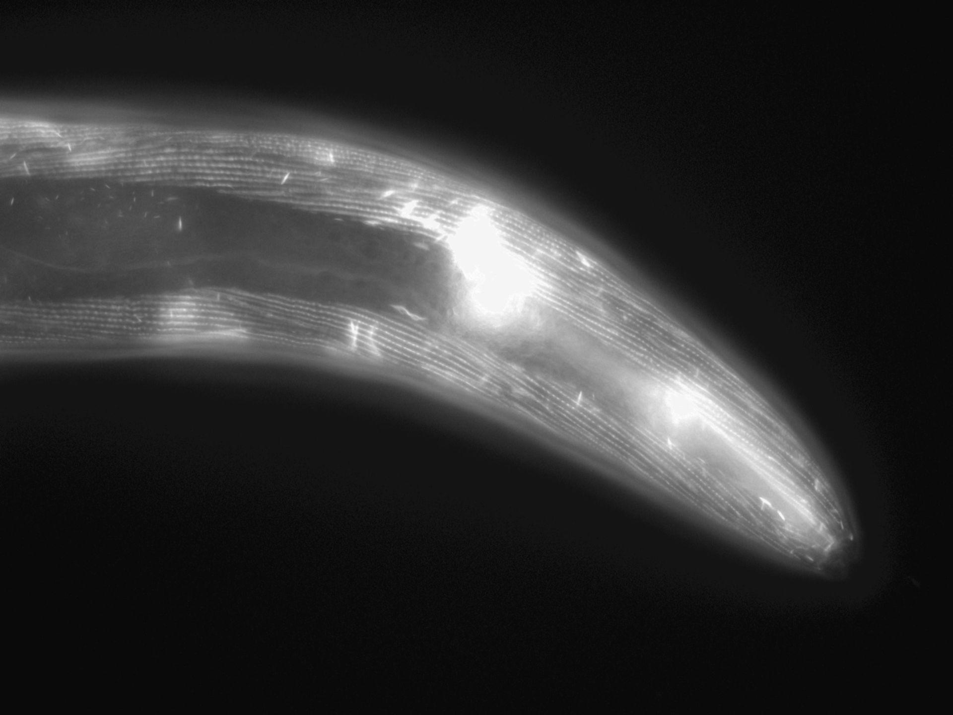 Caenorhabditis elegans (Actin filament) - CIL:1040