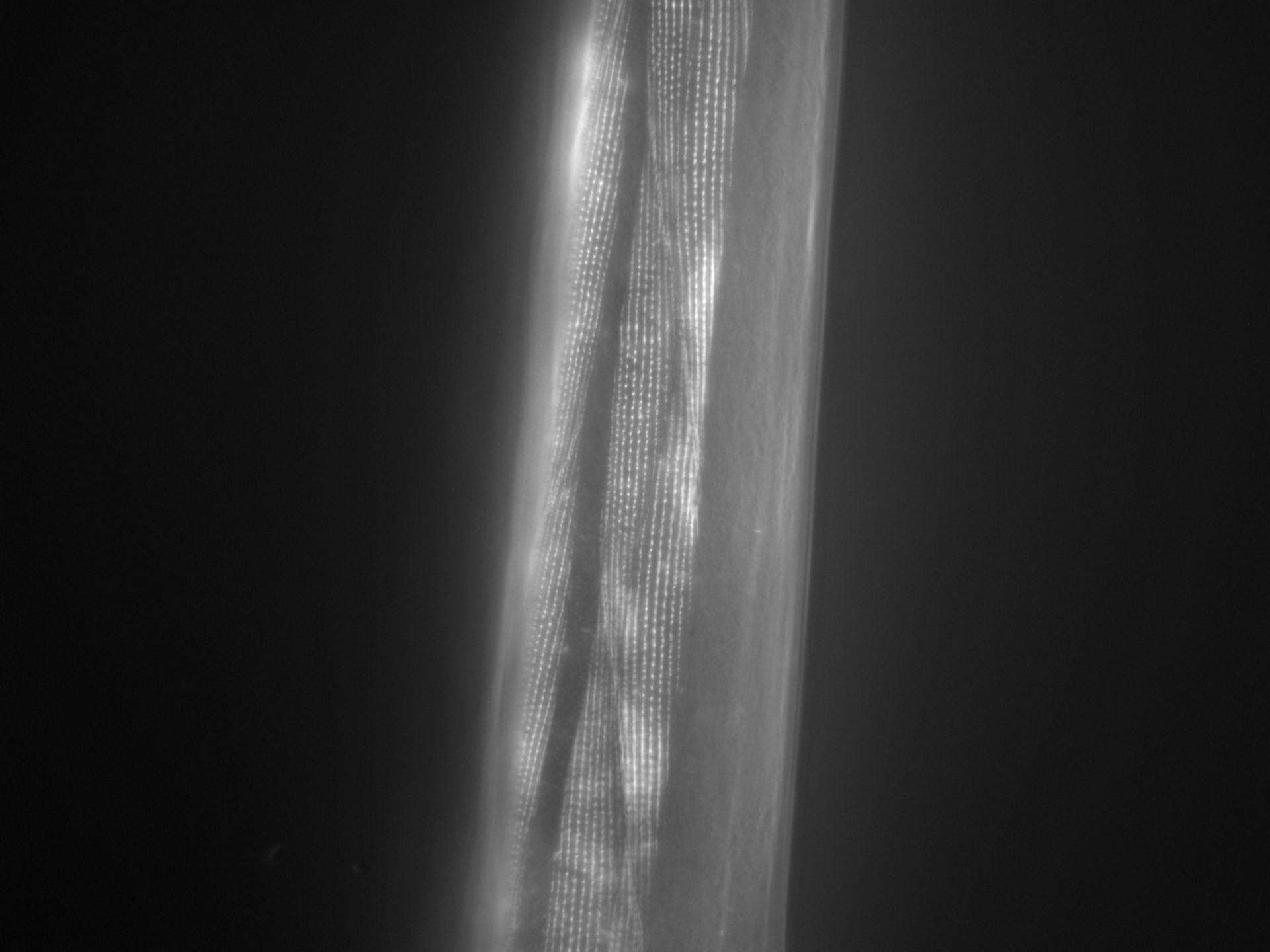 Caenorhabditis elegans (Actin filament) - CIL:1025