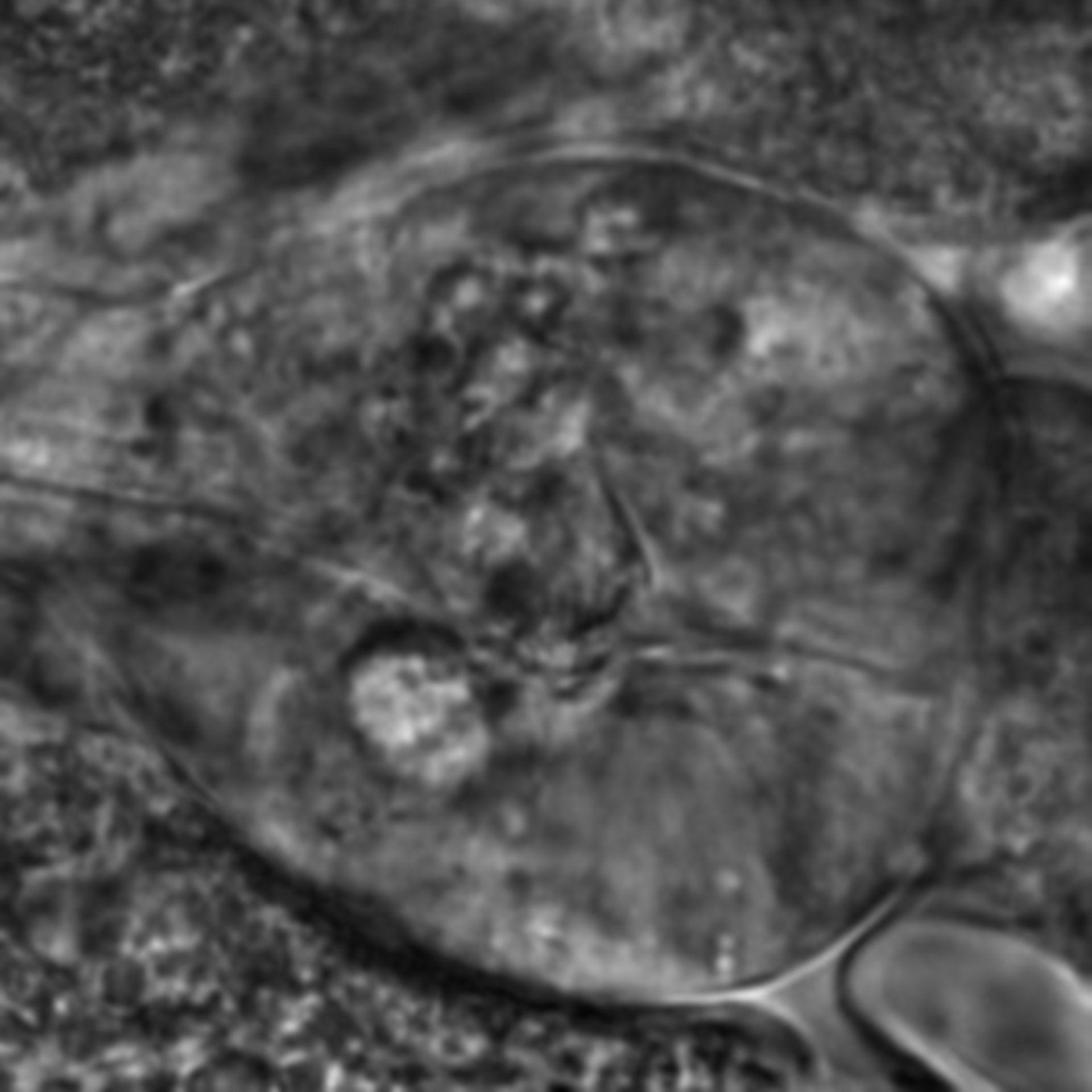Caenorhabditis elegans - CIL:2742