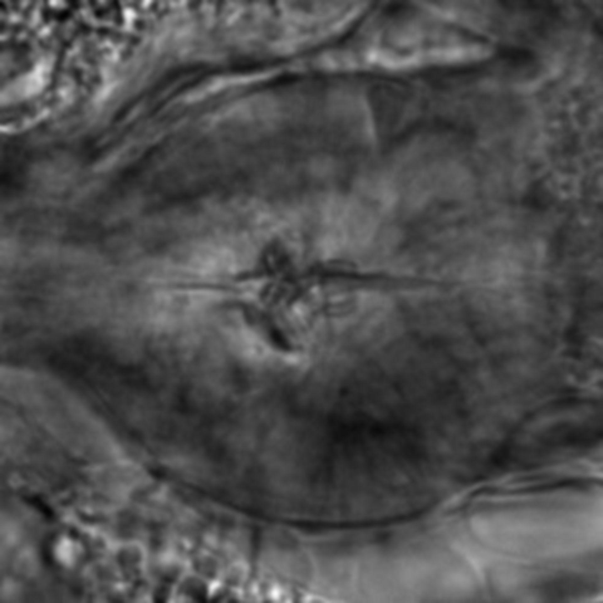 Caenorhabditis elegans - CIL:2247