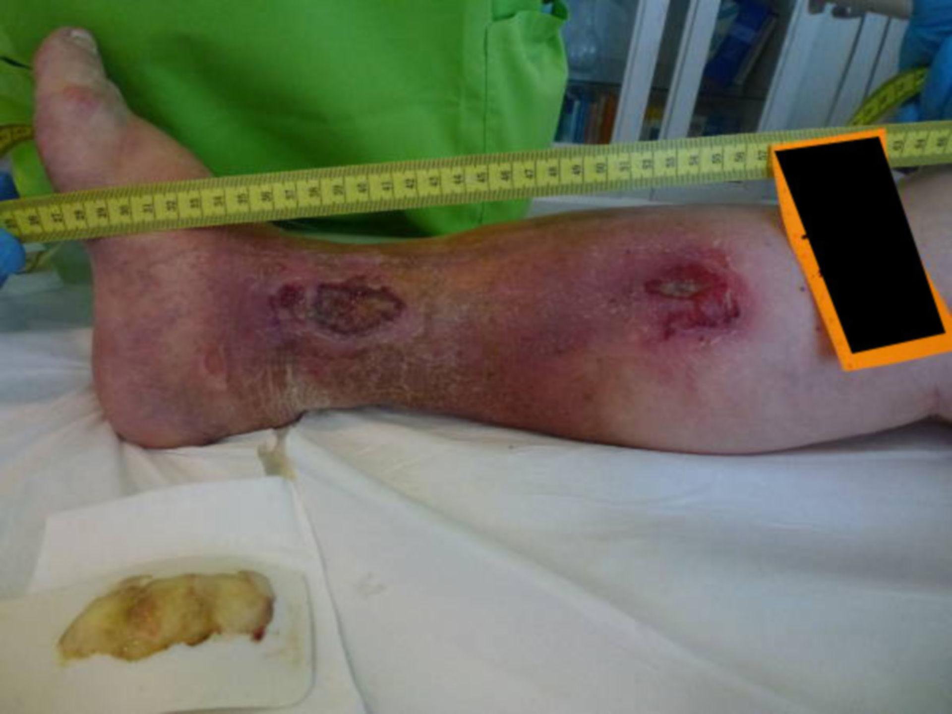 Distal ulcer: Cockett's ulcer