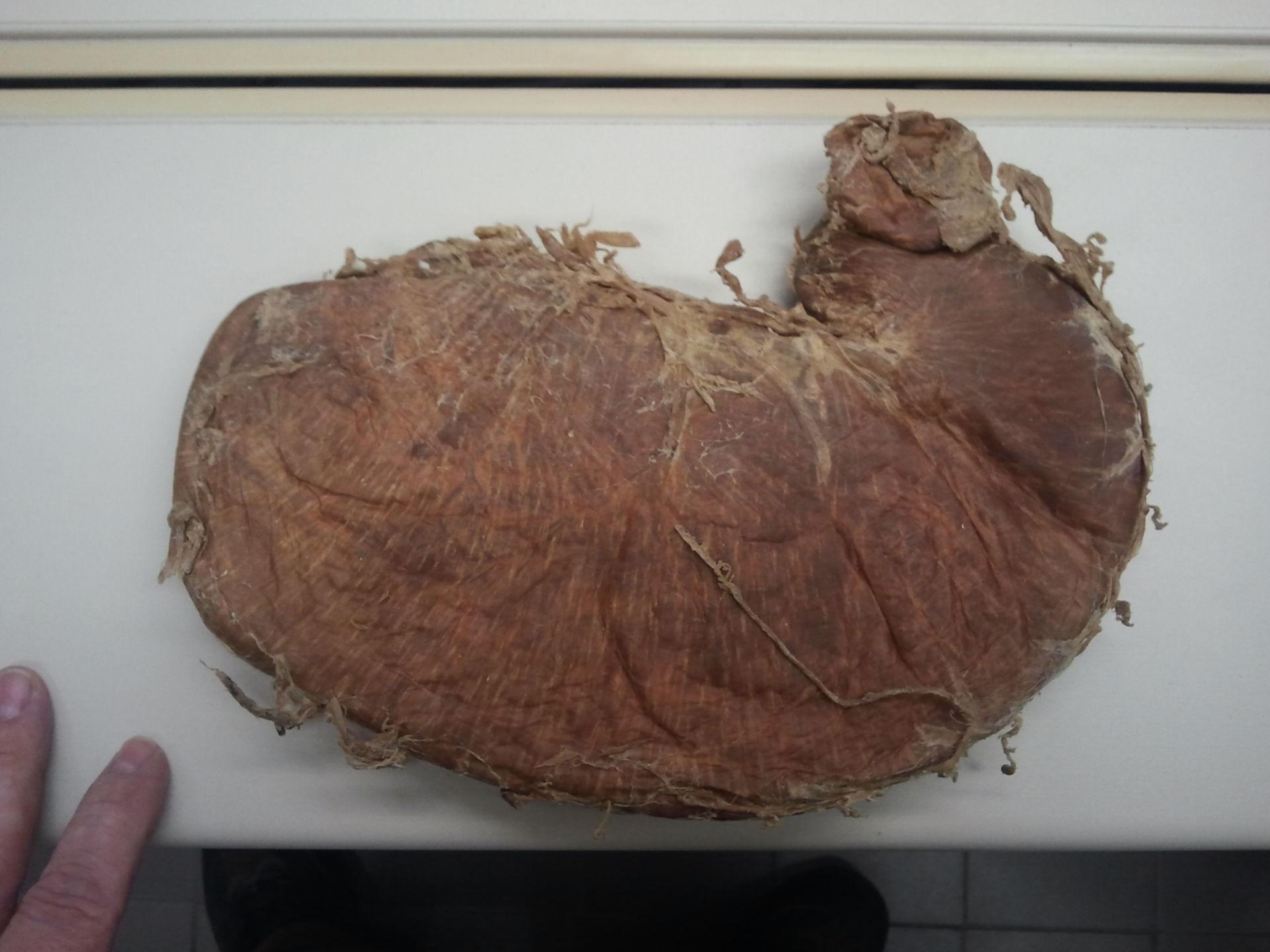 Stomaco plastinato dorsale