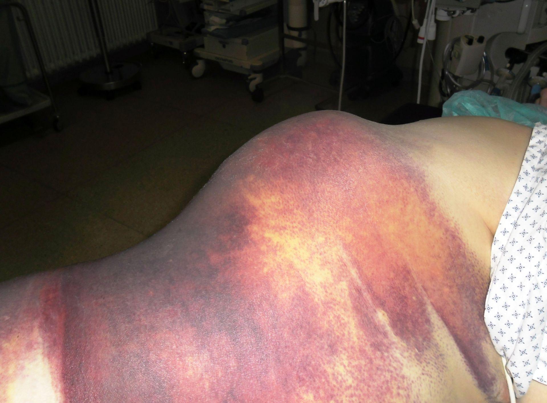 Hemorragia causada por biopsia de higado