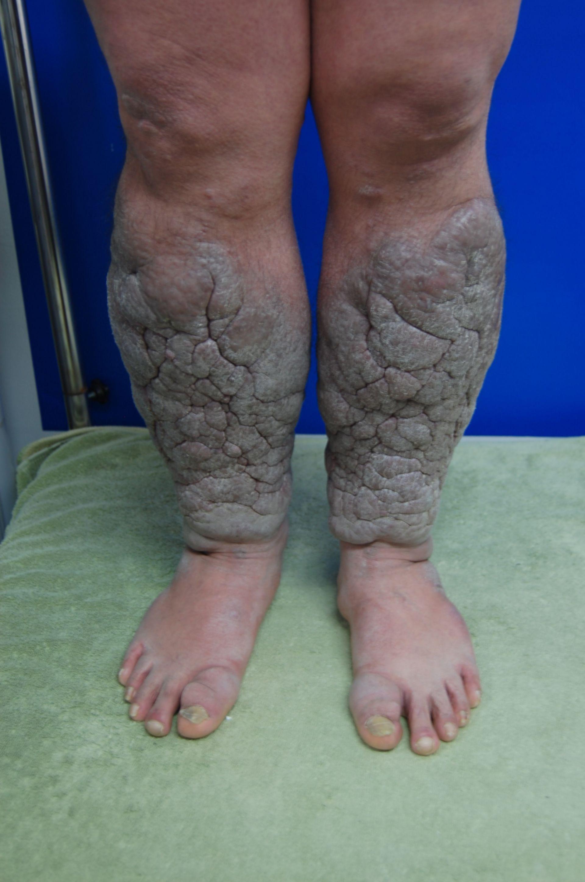 Tessuto cheloidi (3)