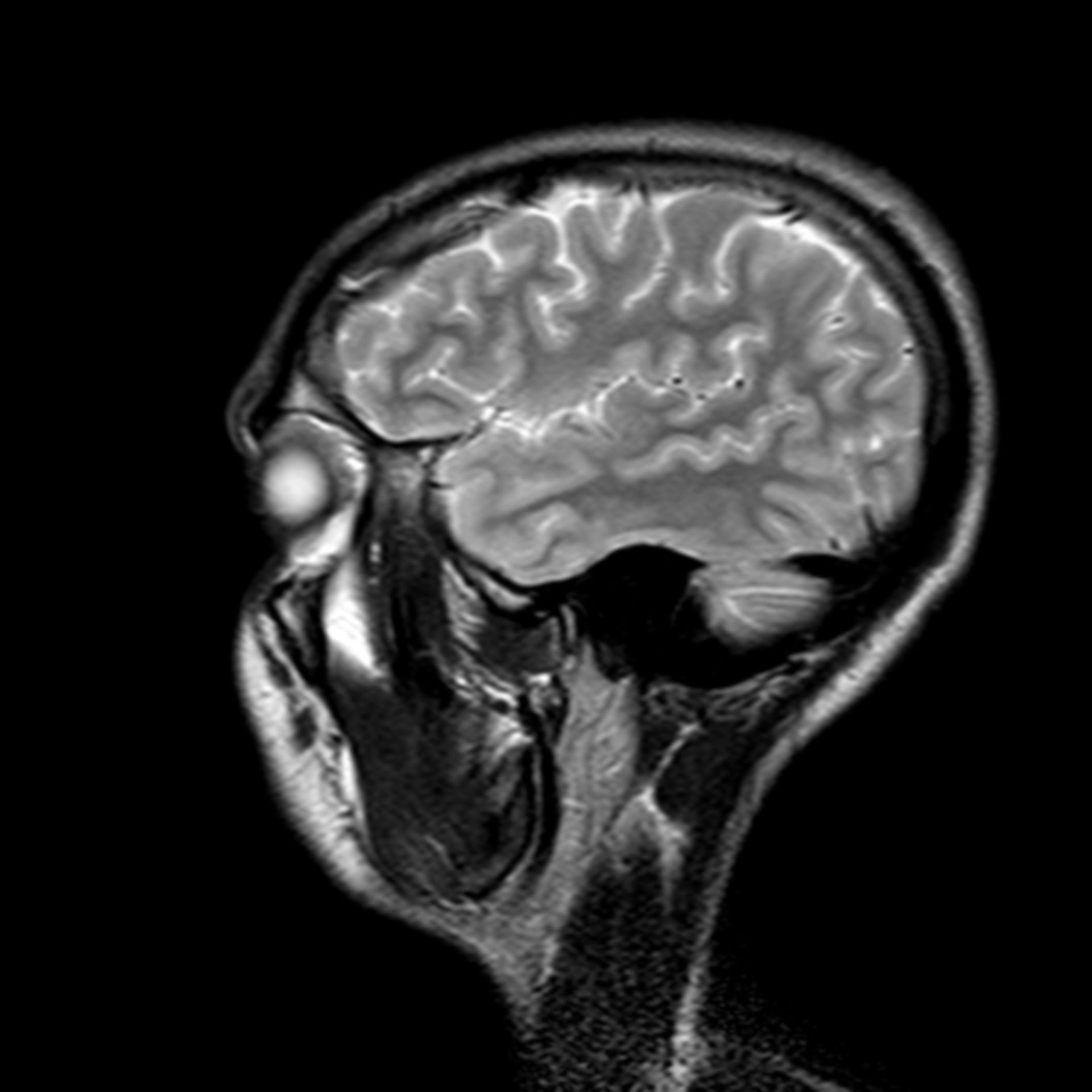 (07/34) MRT Schädel in Sagittalebene, T₂‐gewichtet