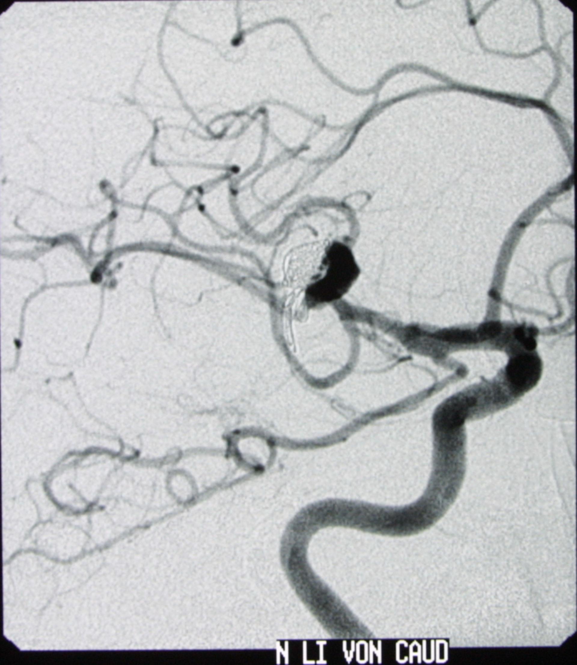 Riesenaneurysma - Angiographie, schräg von lateral nach 5 Jahren