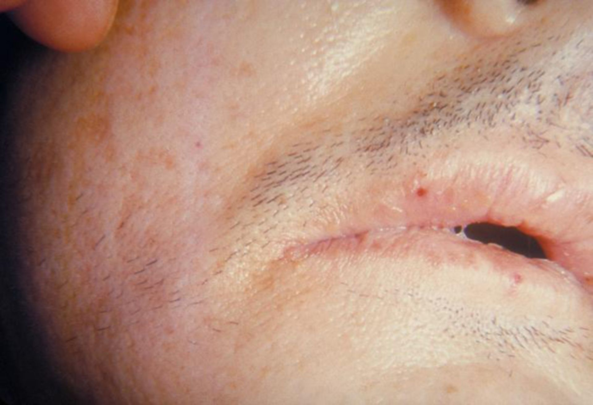 Staphylokokken-Infektion: Sepsis