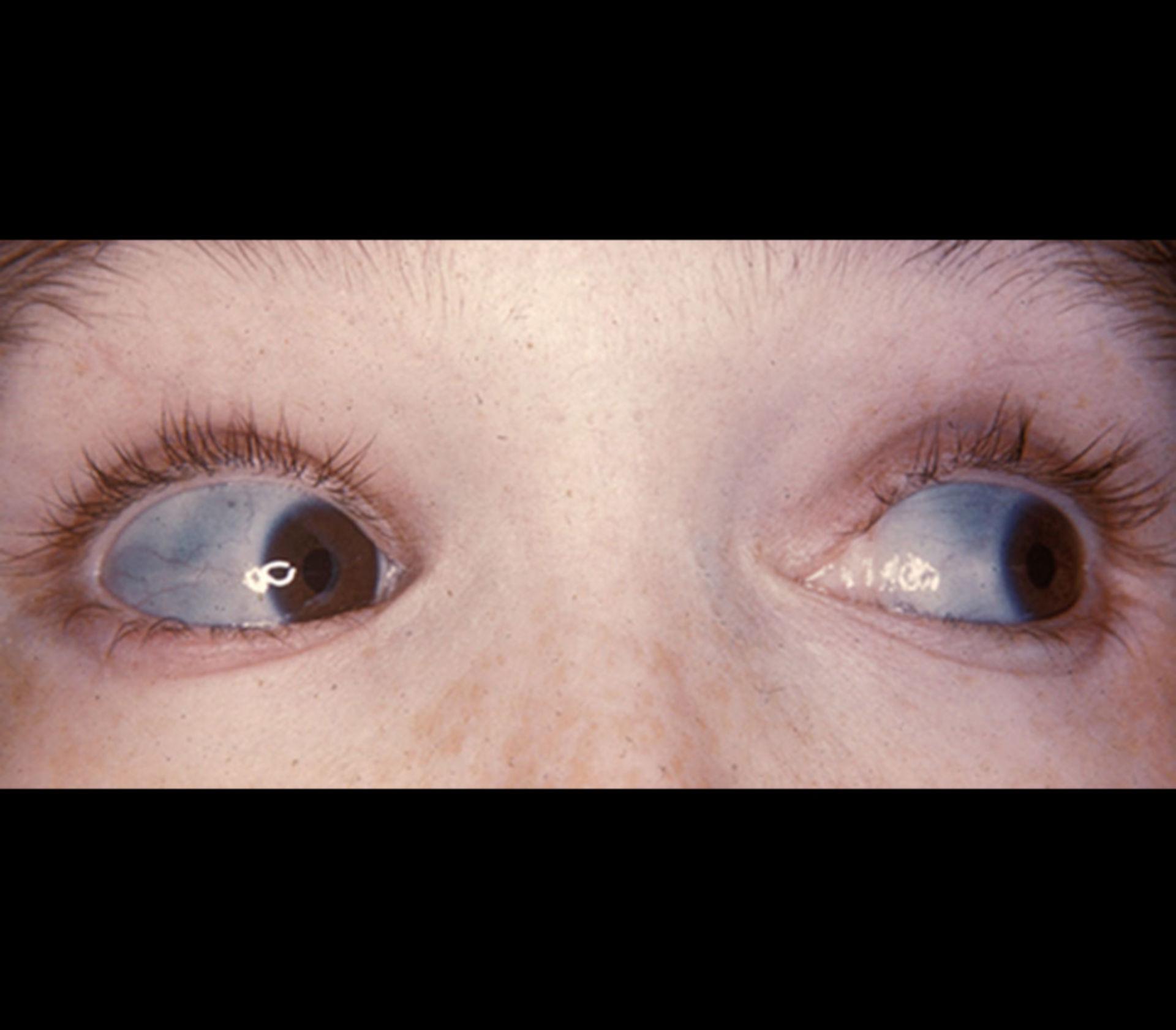 Blaue Skleren bei Osteogenesis imperfecta (OI)
