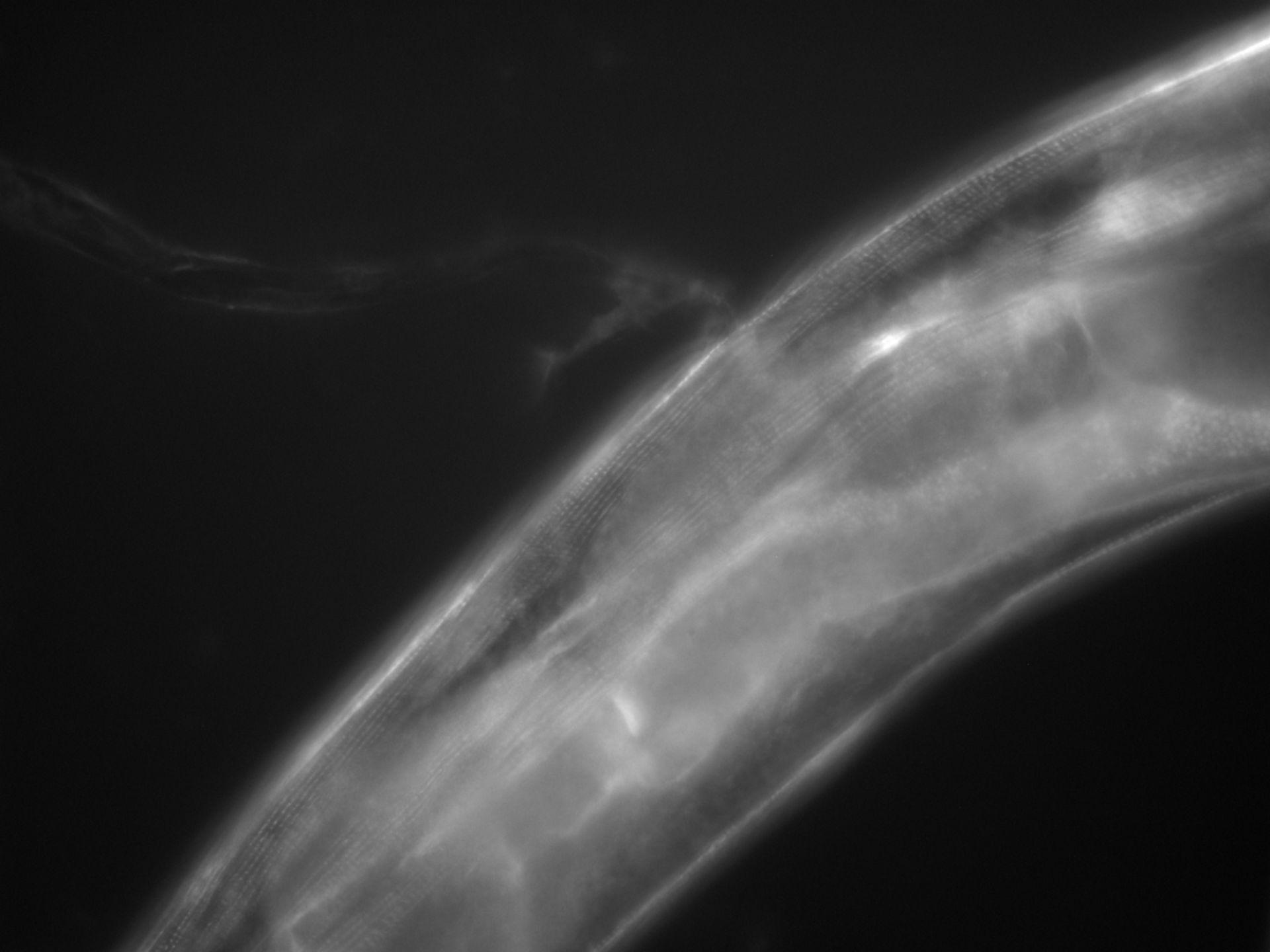 Caenorhabditis elegans (filamento di actina) - CIL:1131