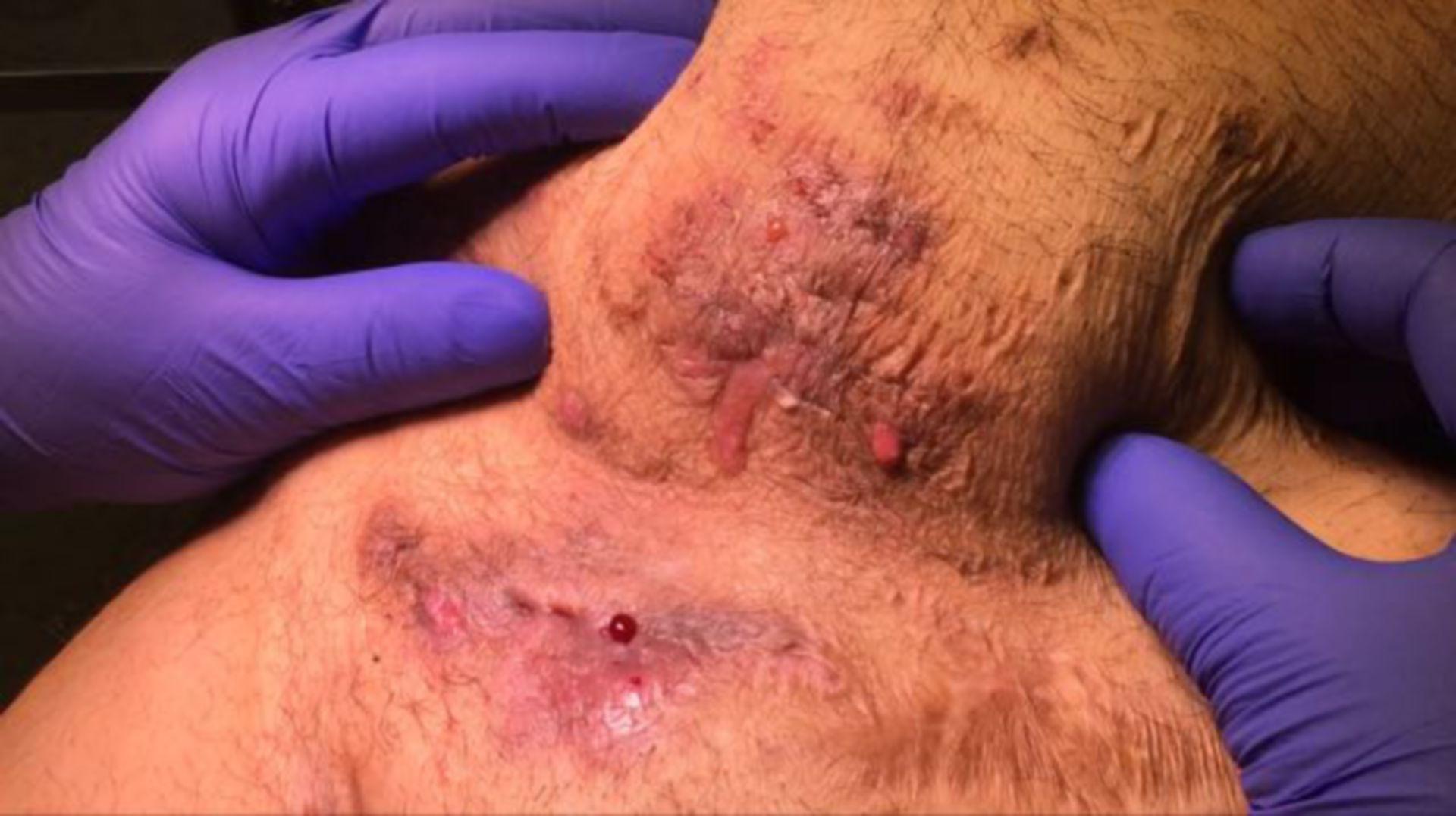 Akne inversa Bauchdecke