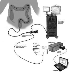 Der Sensor detektiert molekulare Marker einer chronisch entzündlichen Darmerkrankung. Credit: Vanderbilt University