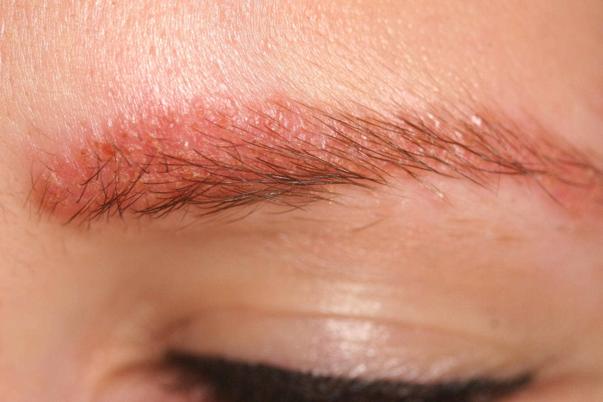 Dermatitis por alergía a tinte de cejas