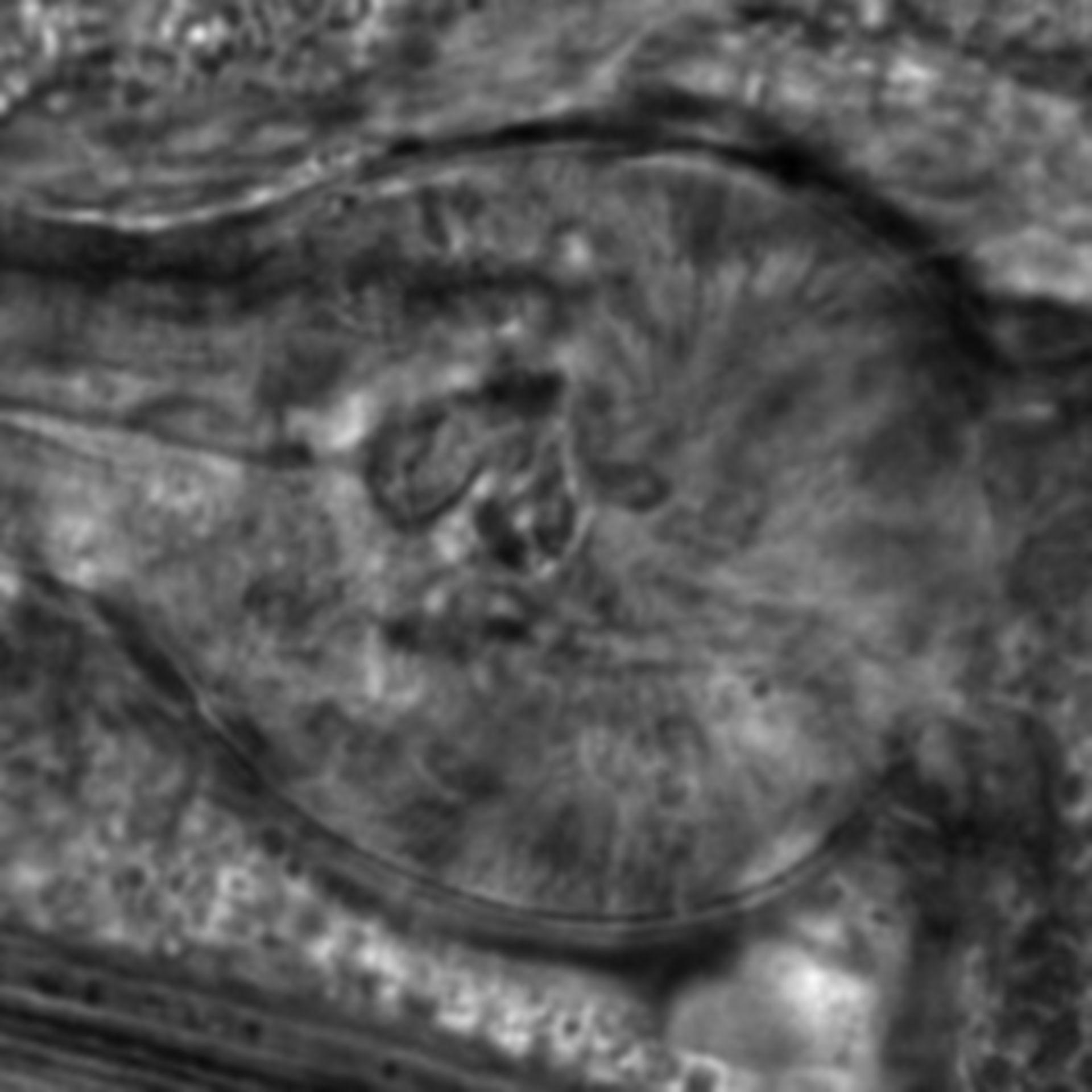 Caenorhabditis elegans - CIL:2171