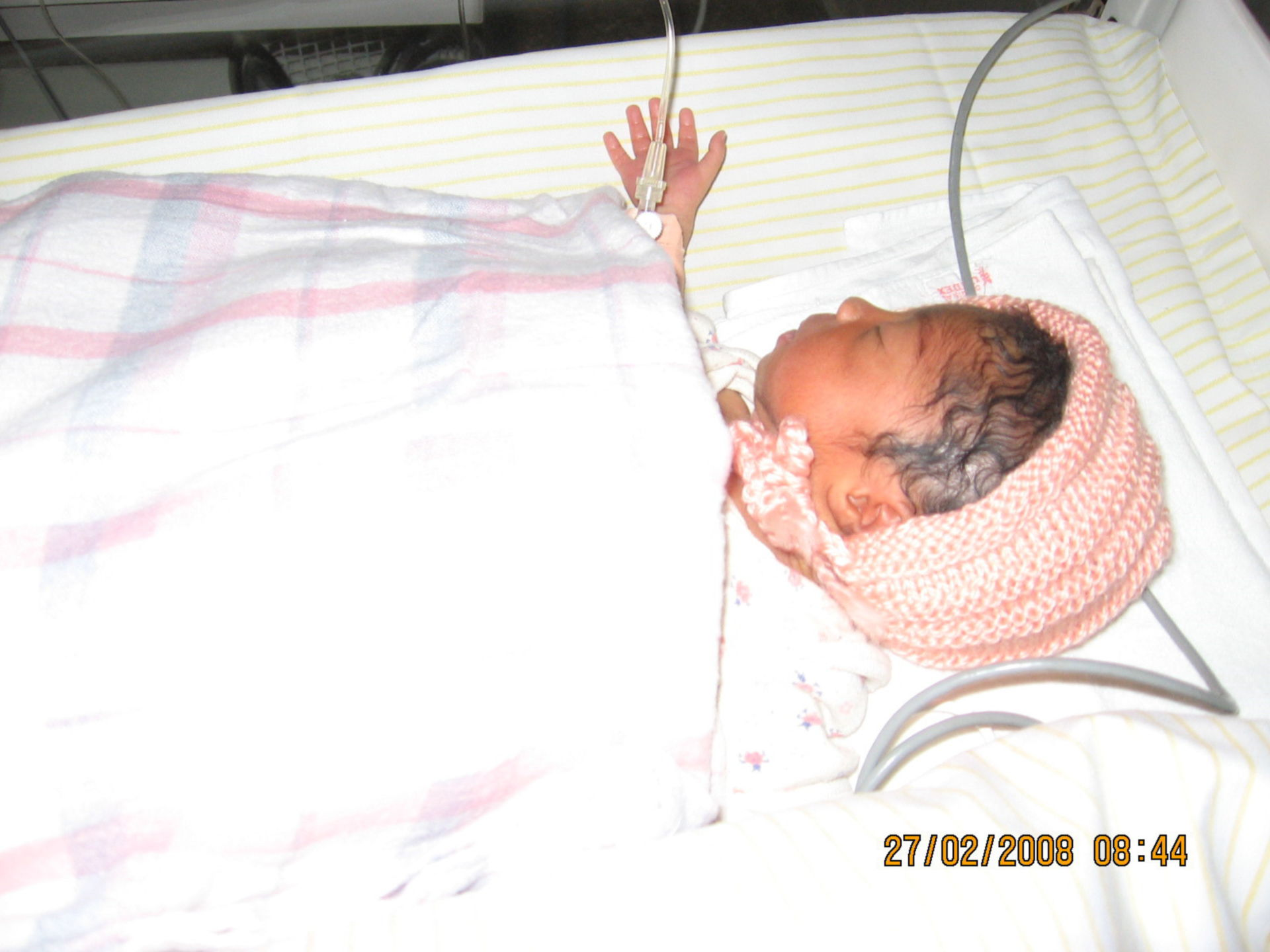 Preterm birth