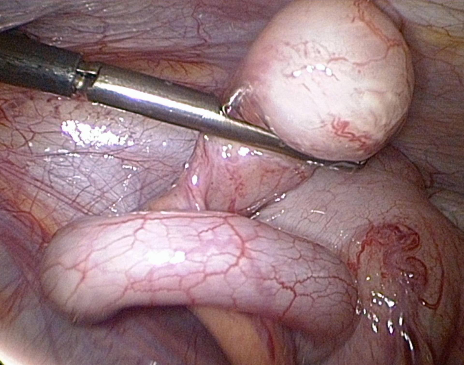 Appendizitis-Spitze klobig aufgetrieben