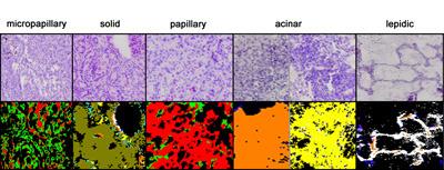 Subtypenerkennung für verschiedene Formen des Adenokarzinoms mithilfe der Spektralen Histopathologie (unten) und herkömmlich gefärbte Gewebeschnitte (oben). © RUB, LS Biophysik