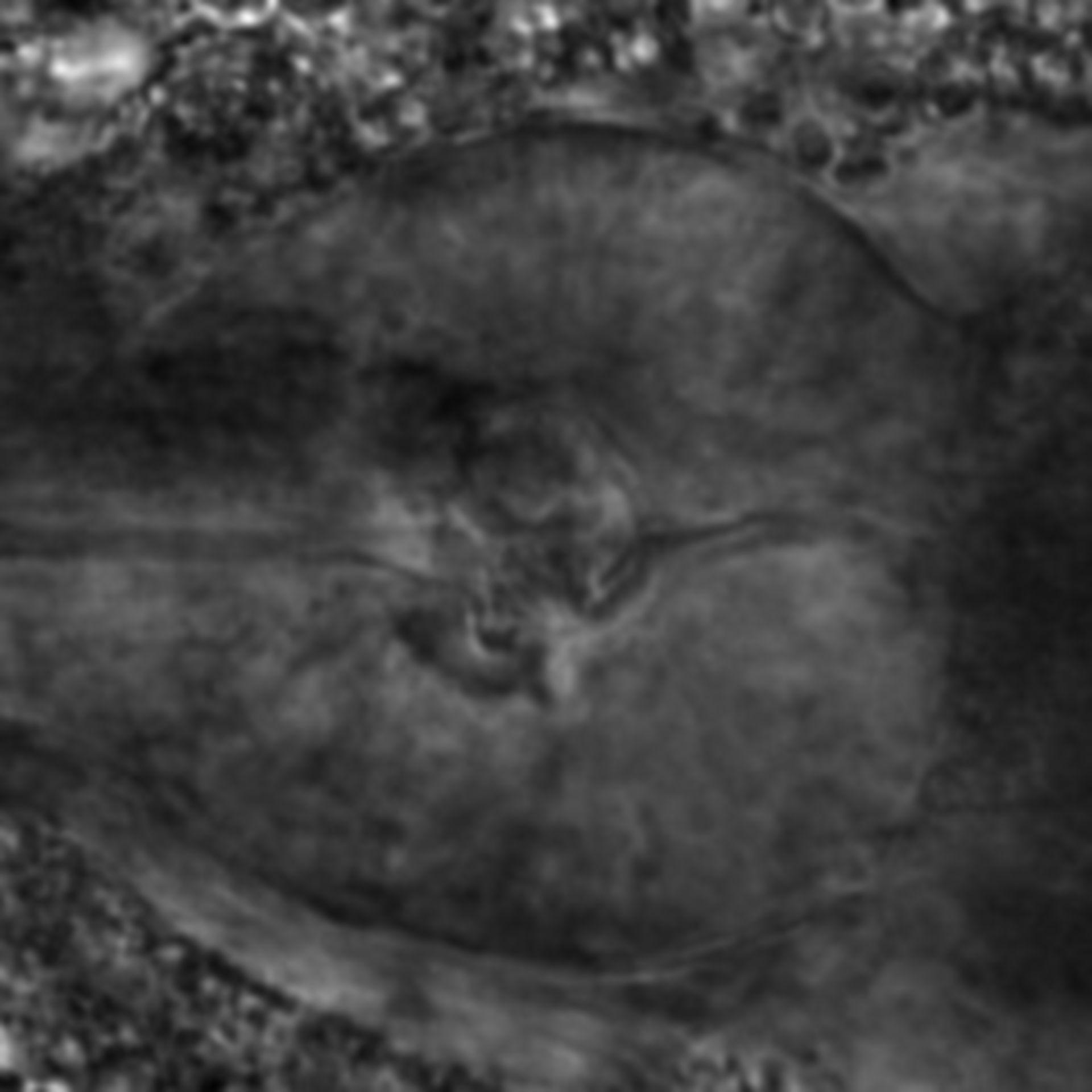 Caenorhabditis elegans - CIL:2273