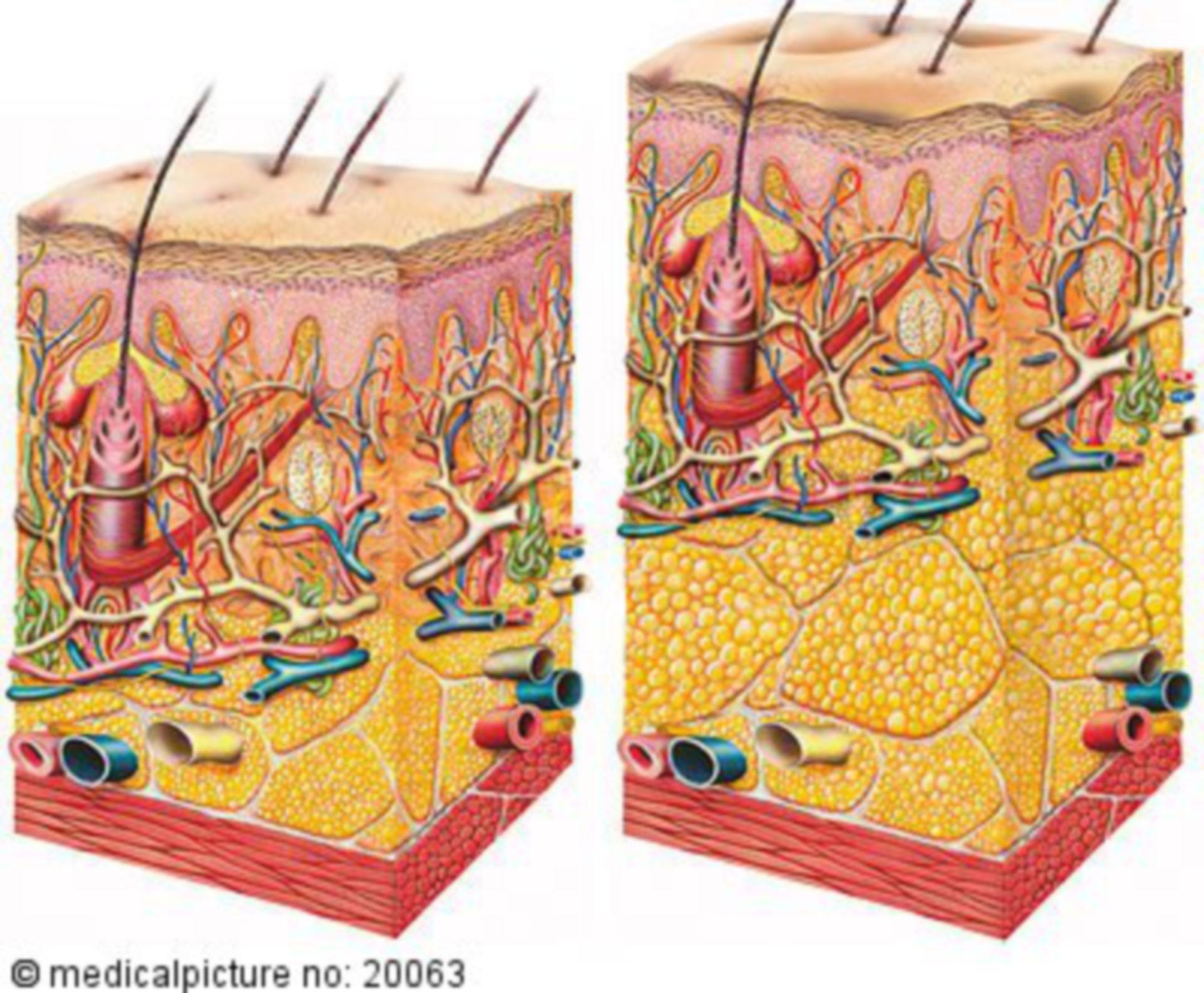 Pelle e cellulite