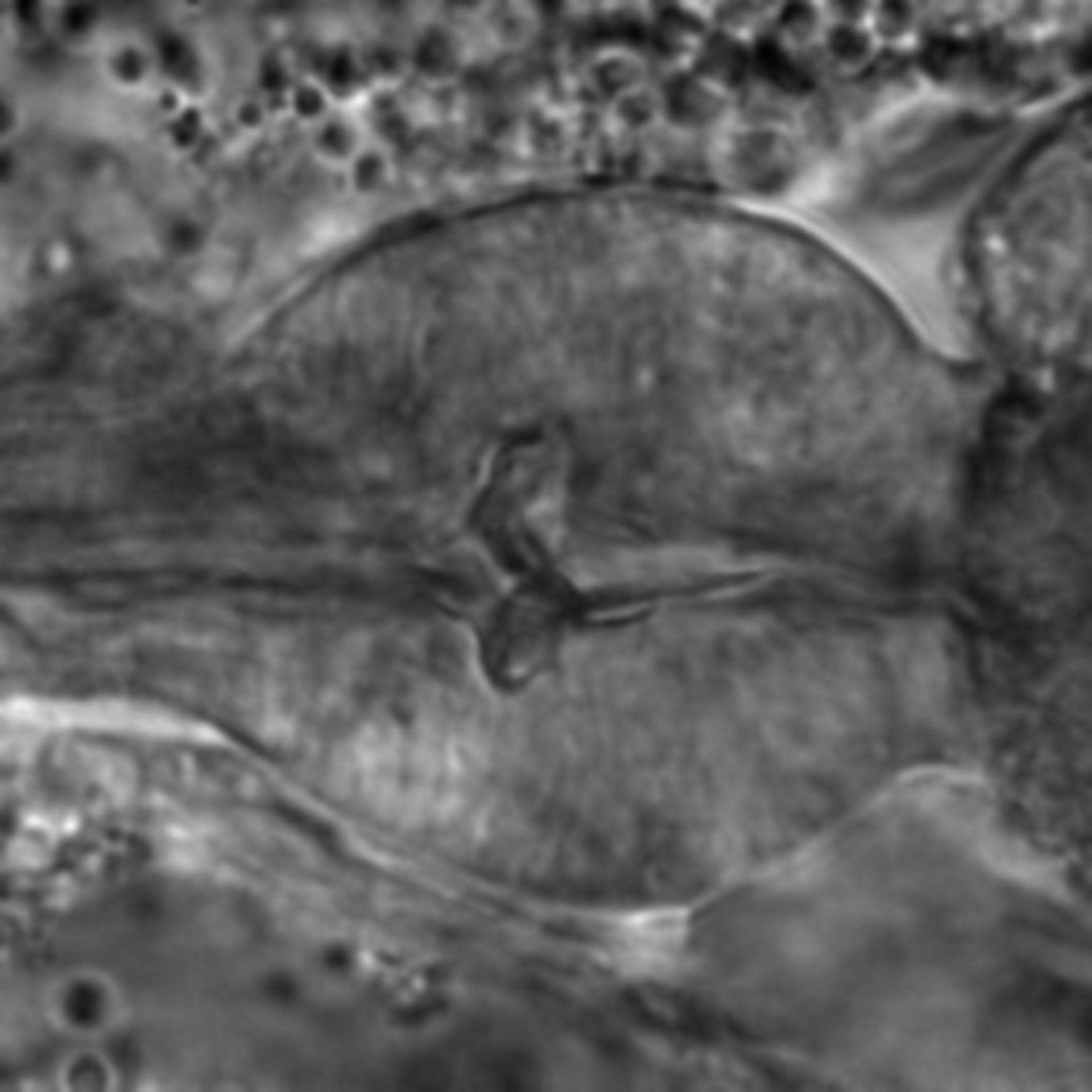 Caenorhabditis elegans - CIL:1716