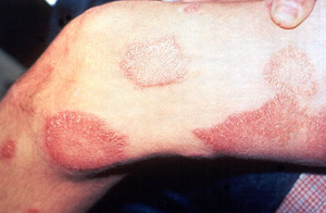 Leprosy cutaneous lesions