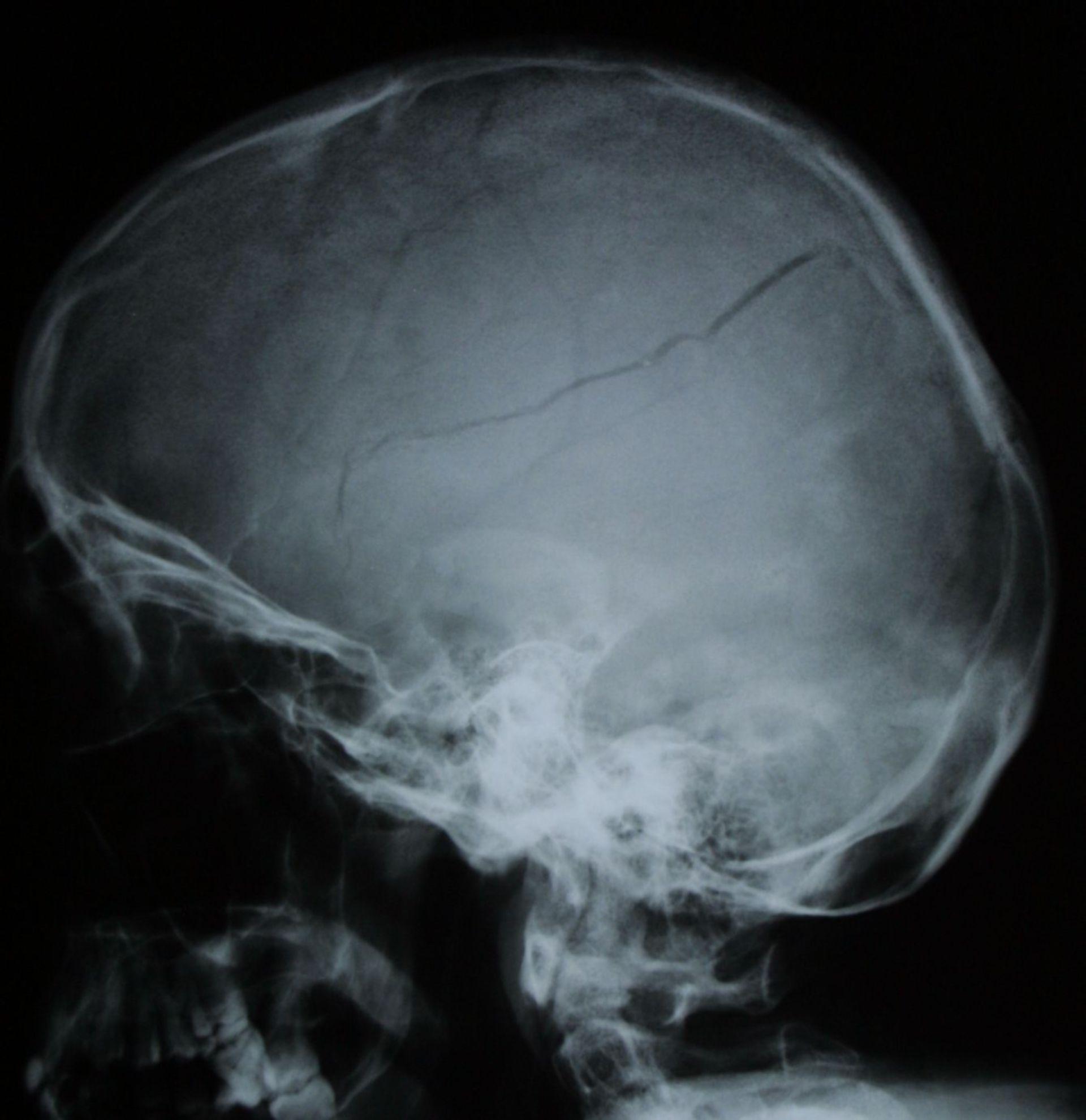 Frattura del cranio con ematoma epidurale