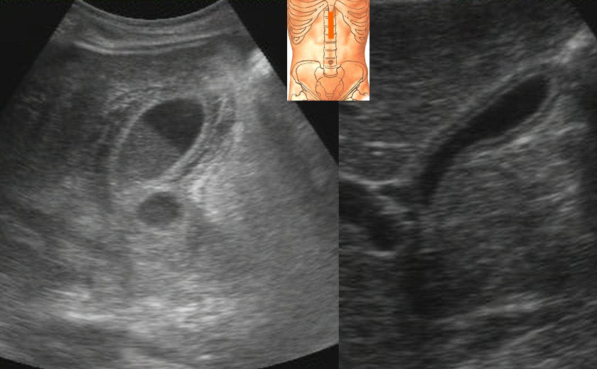 Postprandial gallbladder