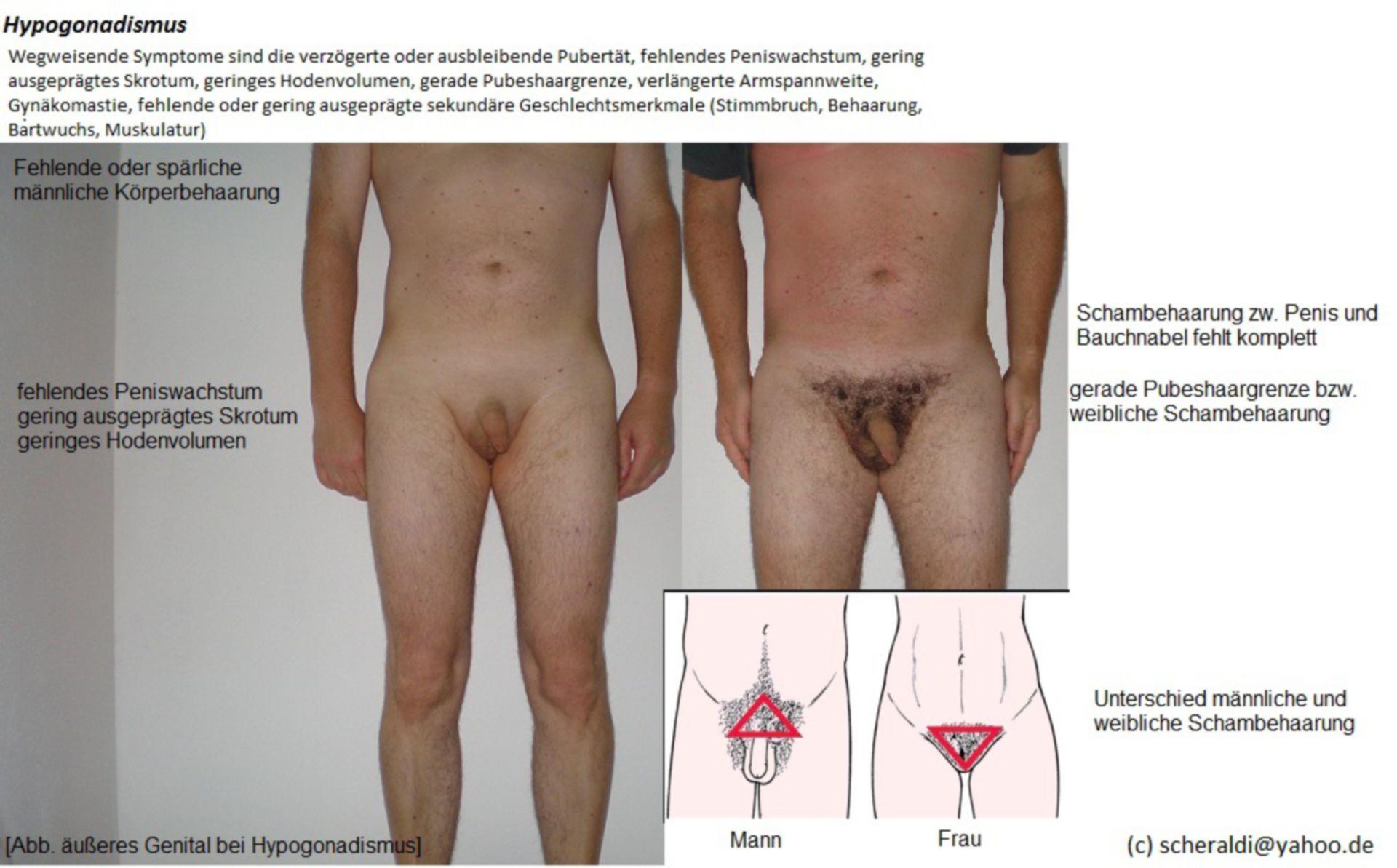 Hipogonadismo (2)