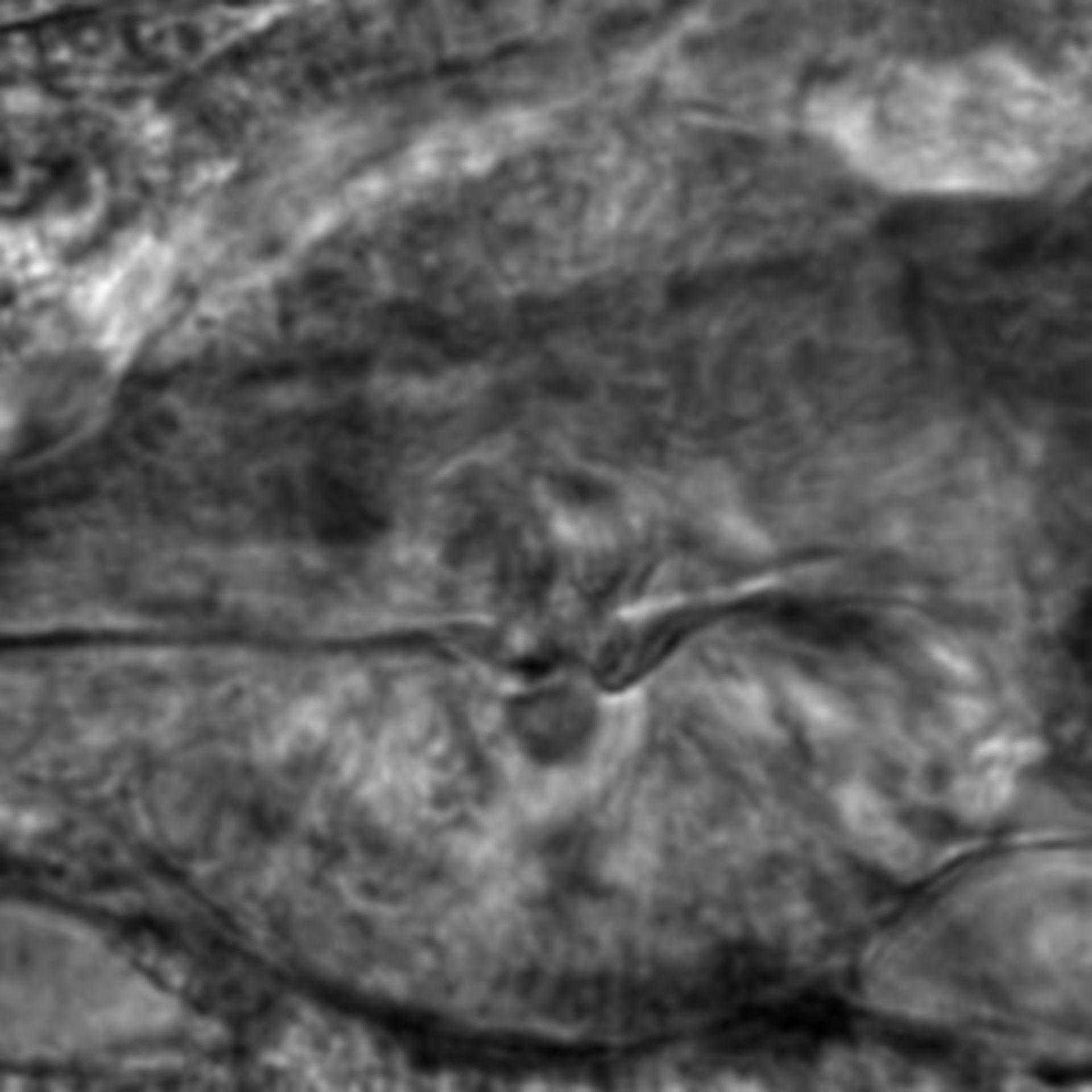 Caenorhabditis elegans - CIL:2793
