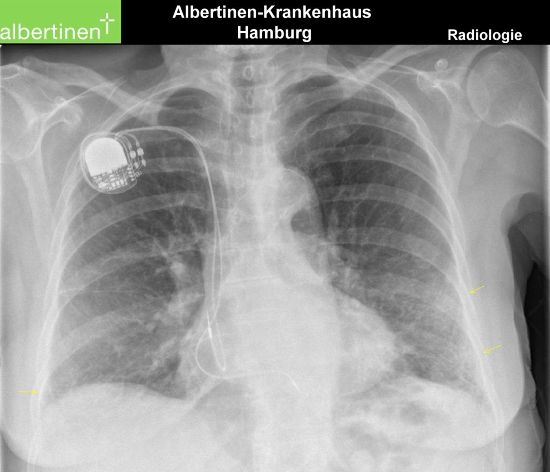 Radiologia-torace-CR-fibrosi