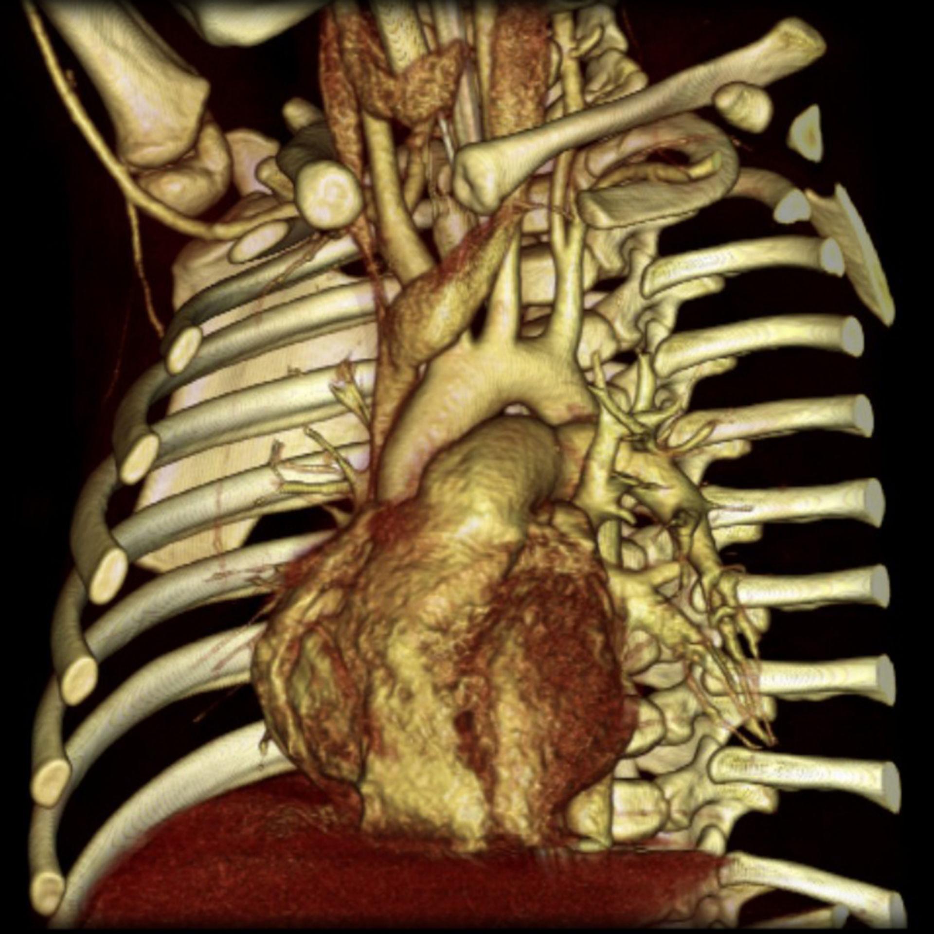 Mediastino di un bambino (reperto normale, 3D-CT)
