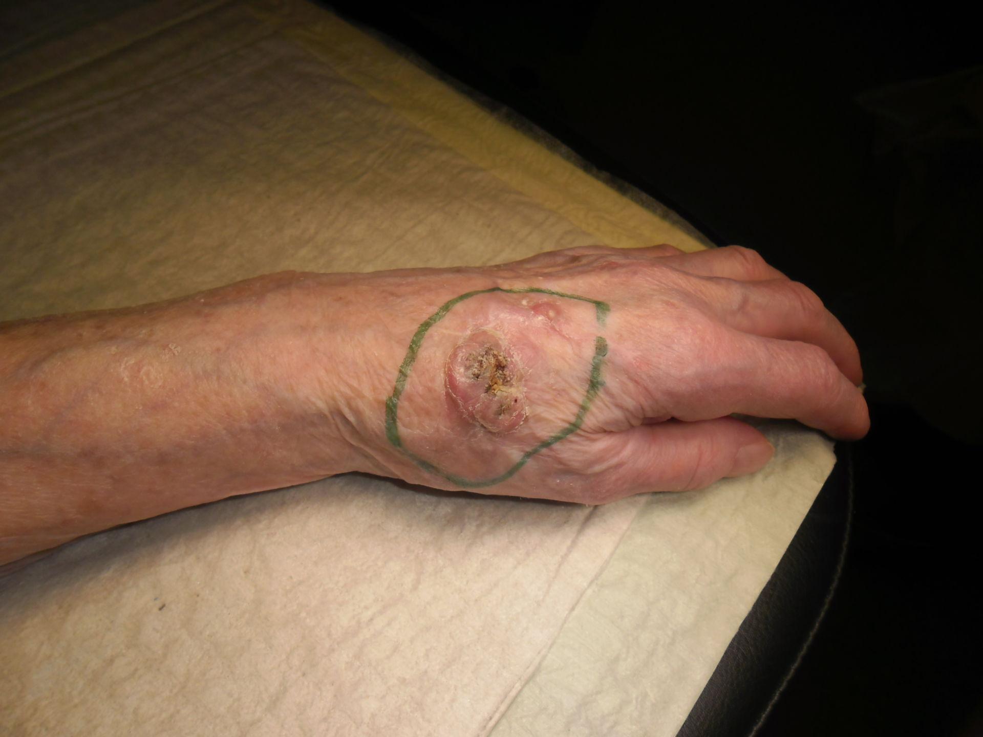 Tumore della mano 1