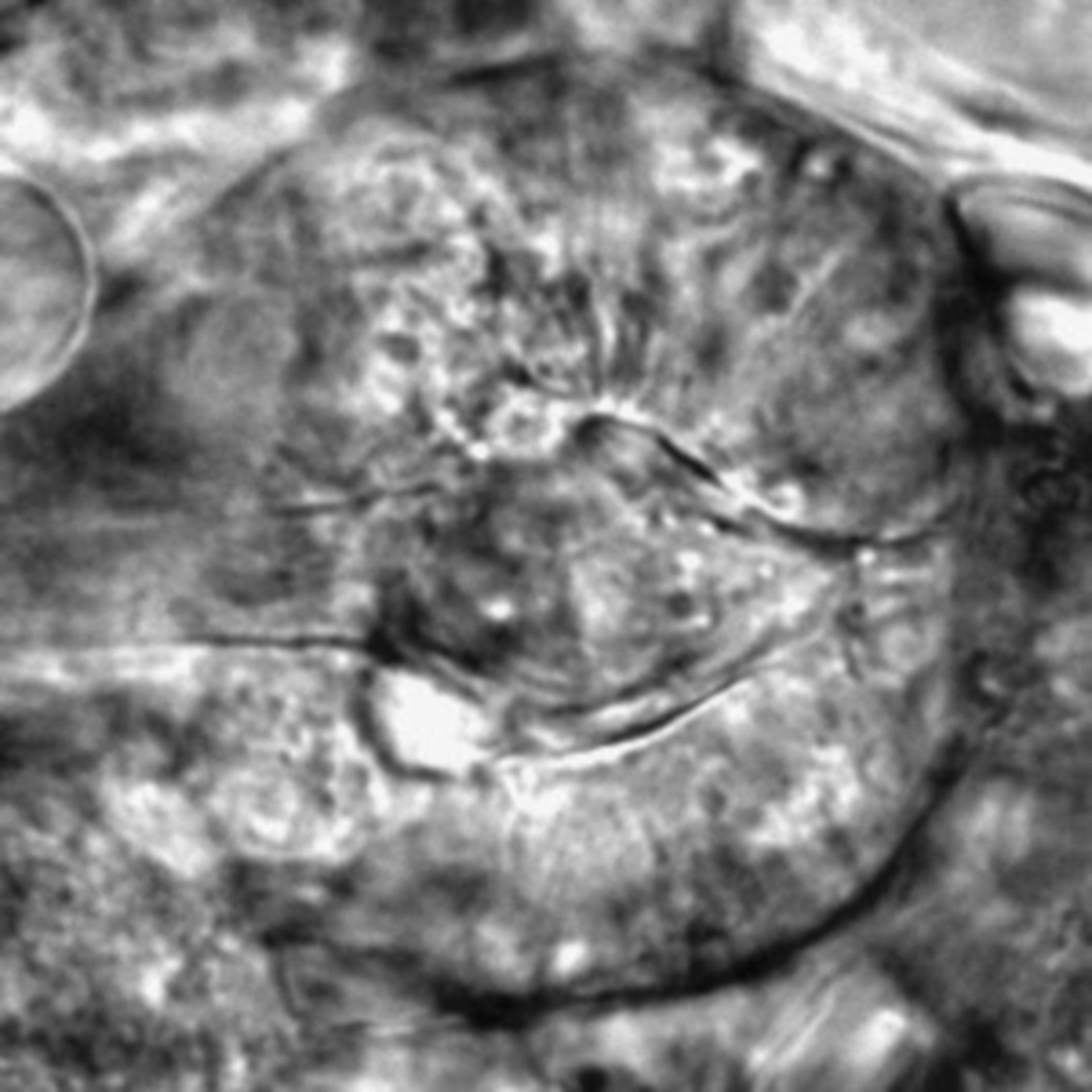 Caenorhabditis elegans - CIL:2613
