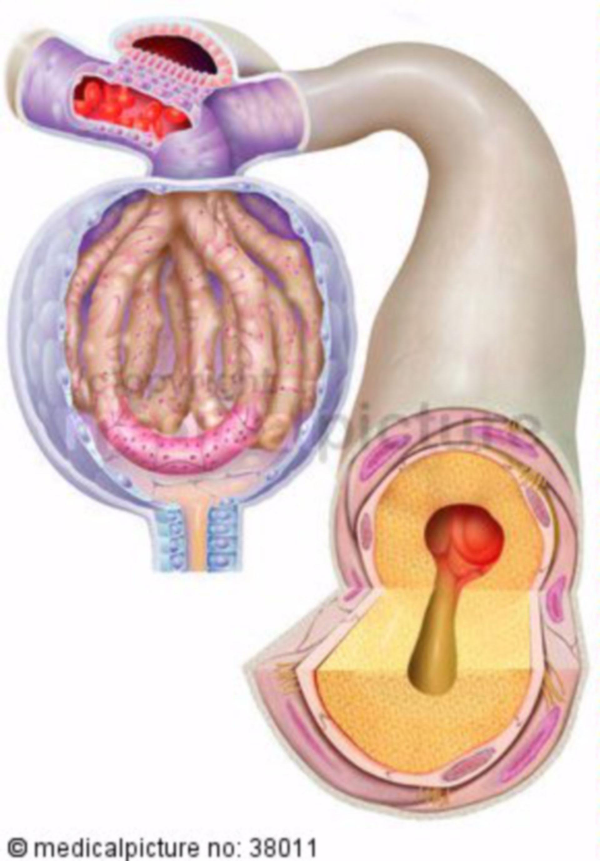 Diabetische Nephropathie