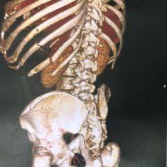 medicamente pentru artroza și artrita genunchiului dureri anterioare ale articulațiilor umărului
