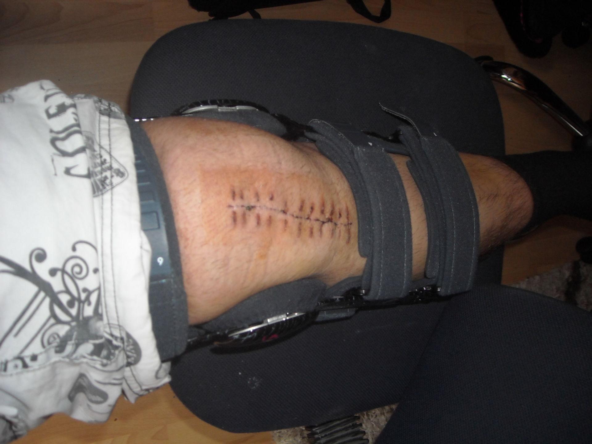 Aftertreatment of a leg surgery