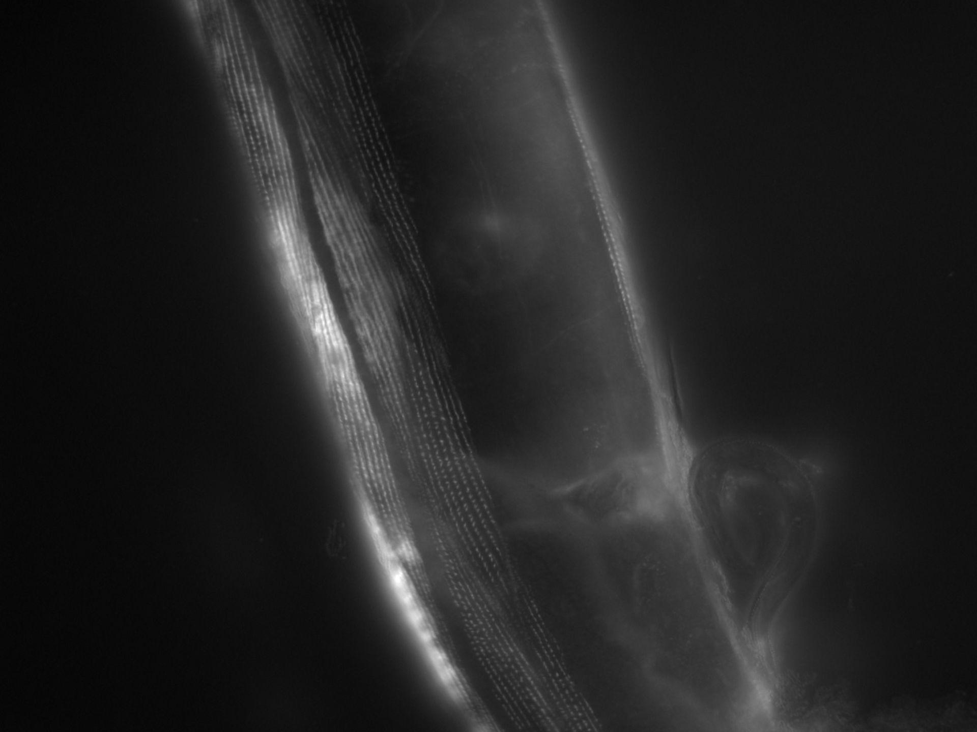 Caenorhabditis elegans (Actin filament) - CIL:1191
