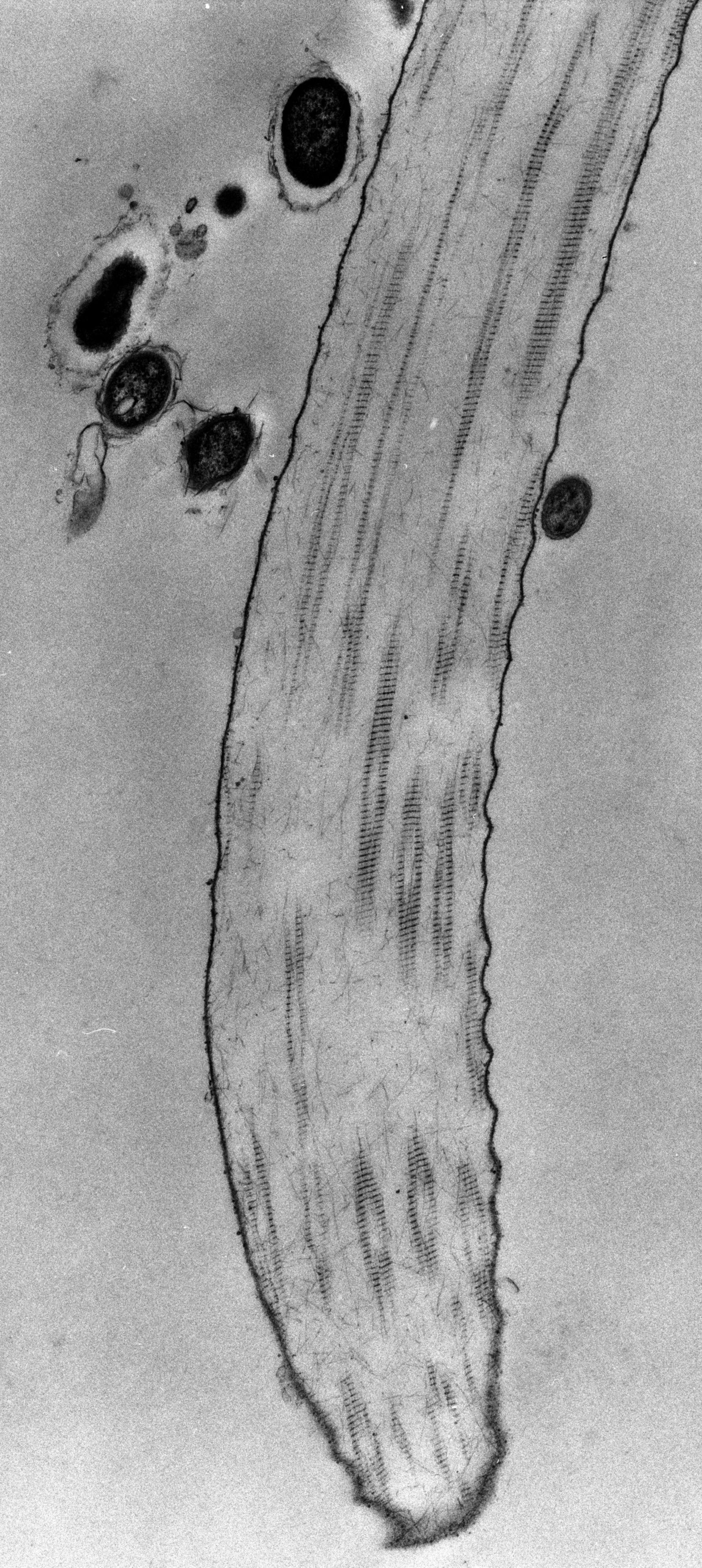 Opercularia coarctata (Fibrille) - CIL:39169