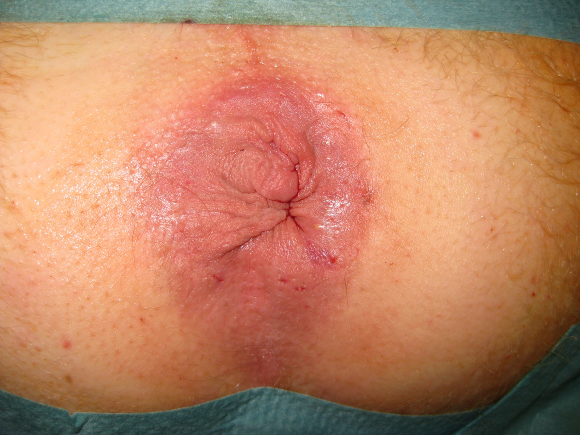 Estado después de la cirugía de Longo