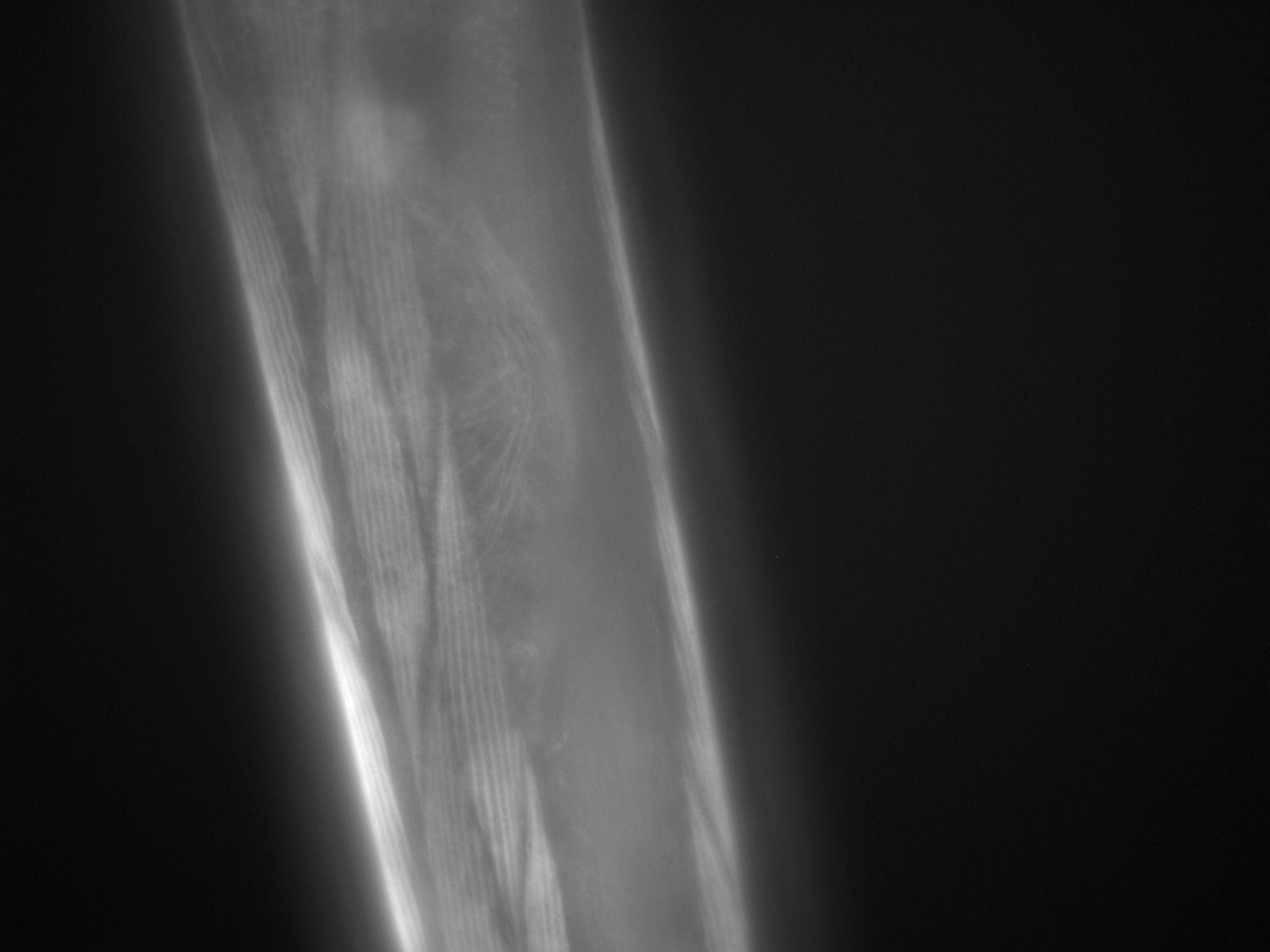Caenorhabditis elegans (Actin filament) - CIL:1265