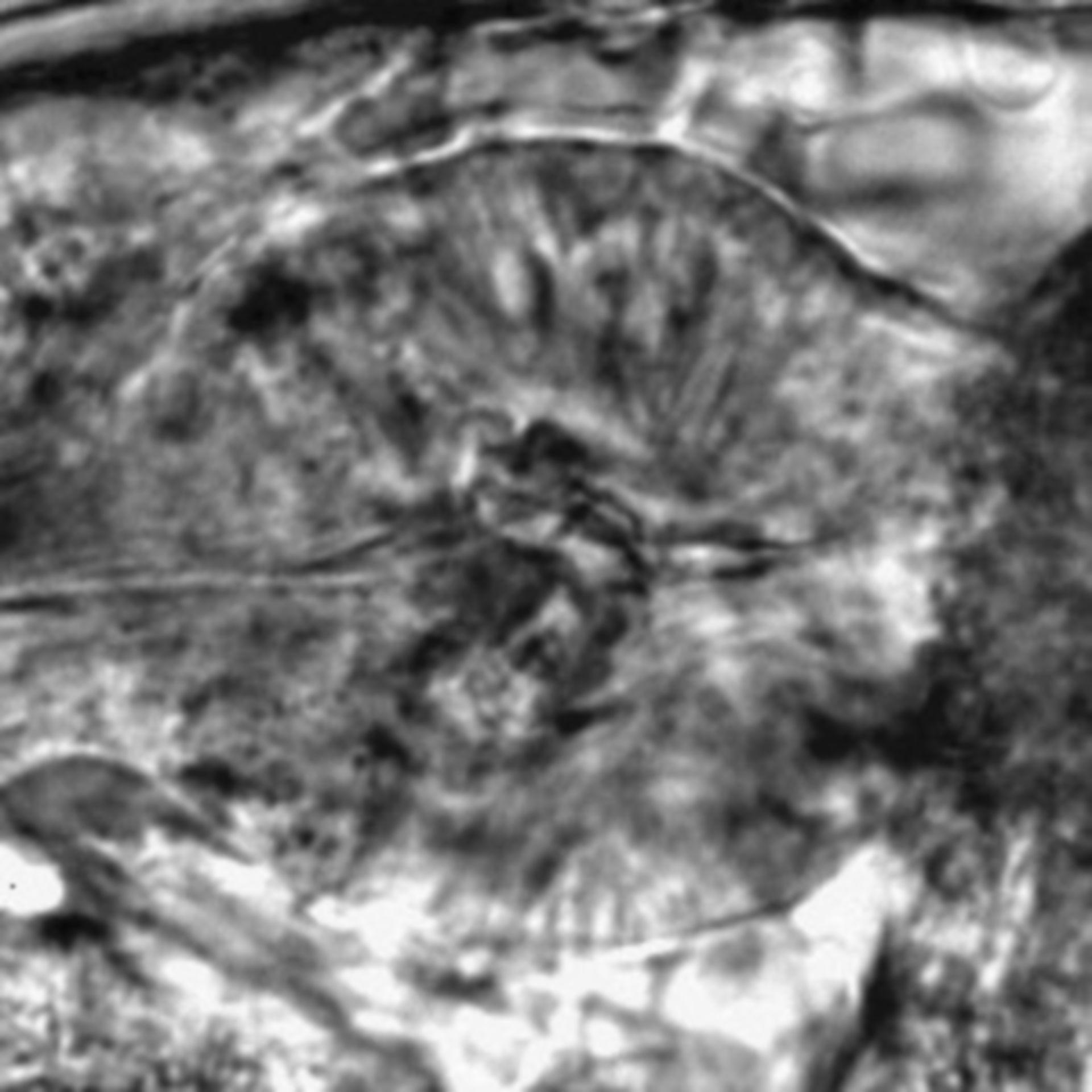 Caenorhabditis elegans - CIL:2721