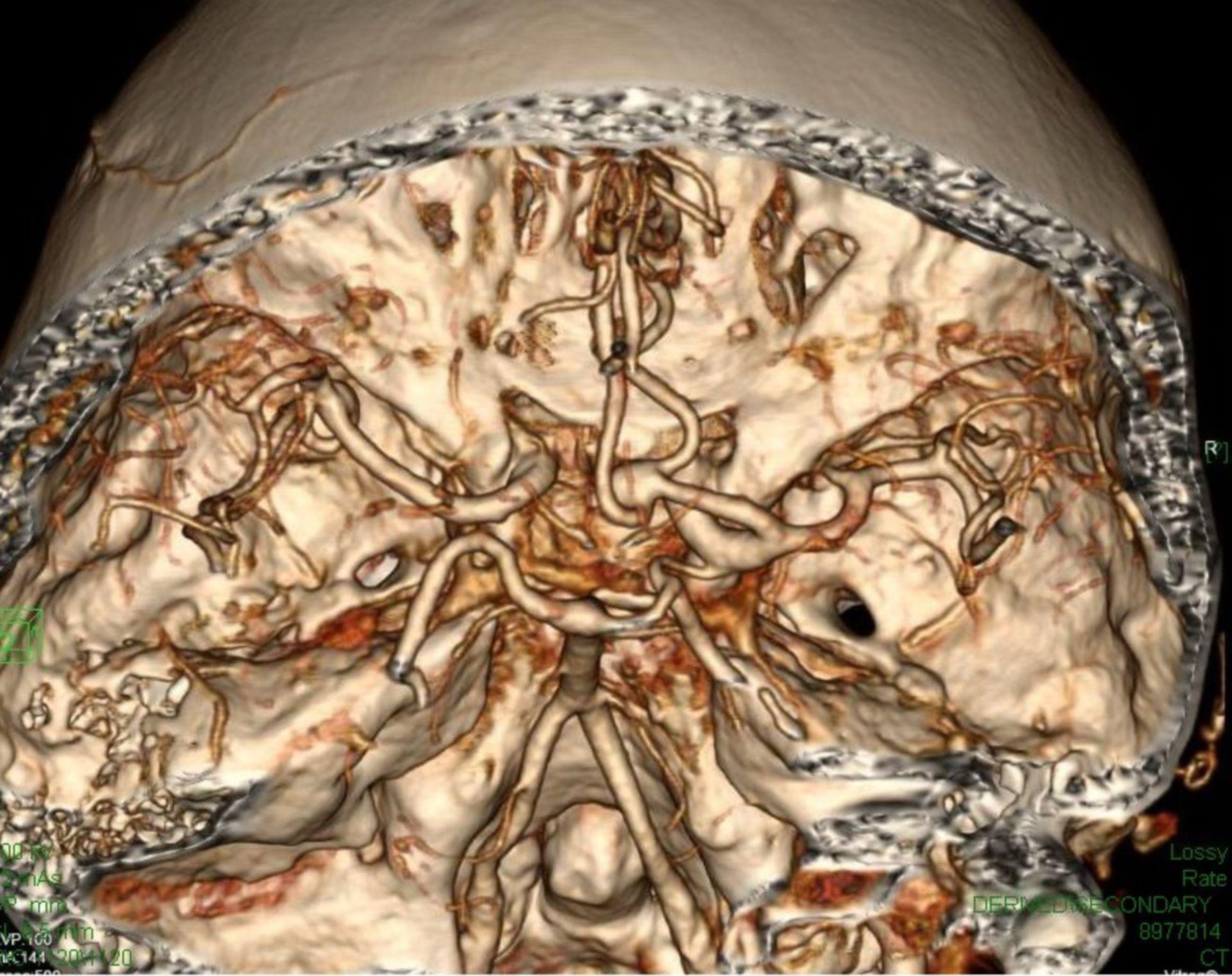 Aneurysma Schädelbasis