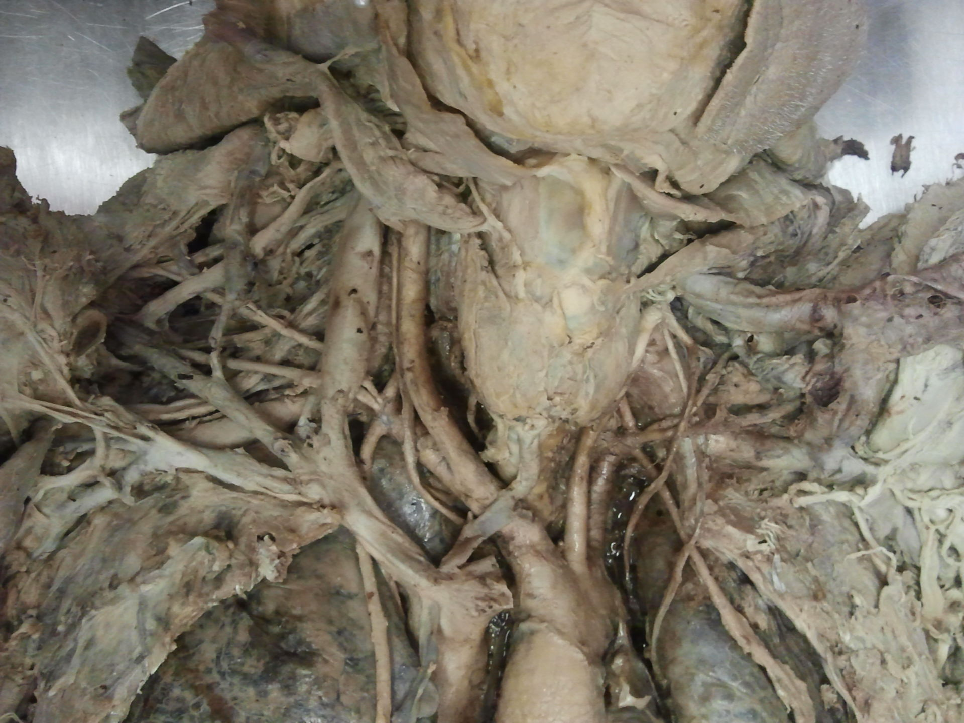 Truncus brachiocephalicus (4)