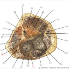 styloiditis radii - doccheck flexikon